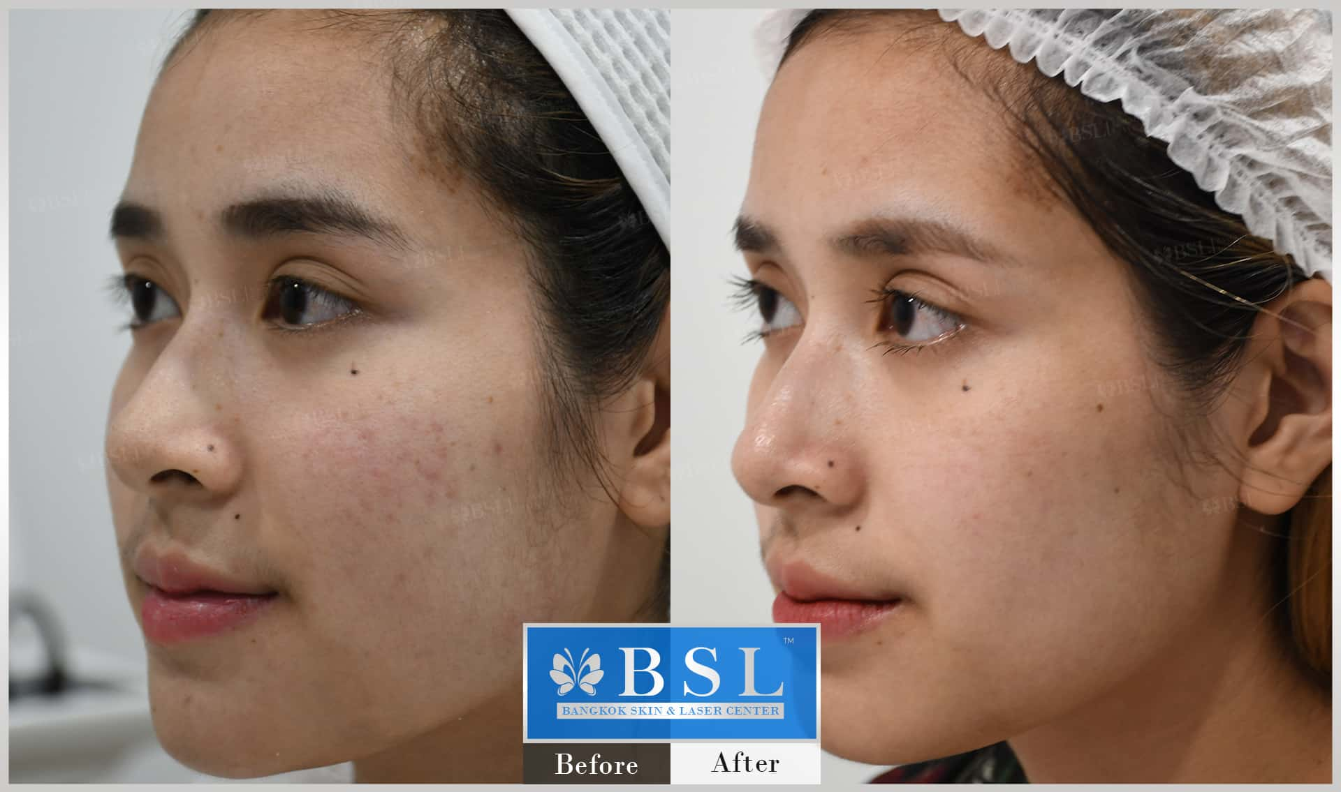 before-after-results-acne-001