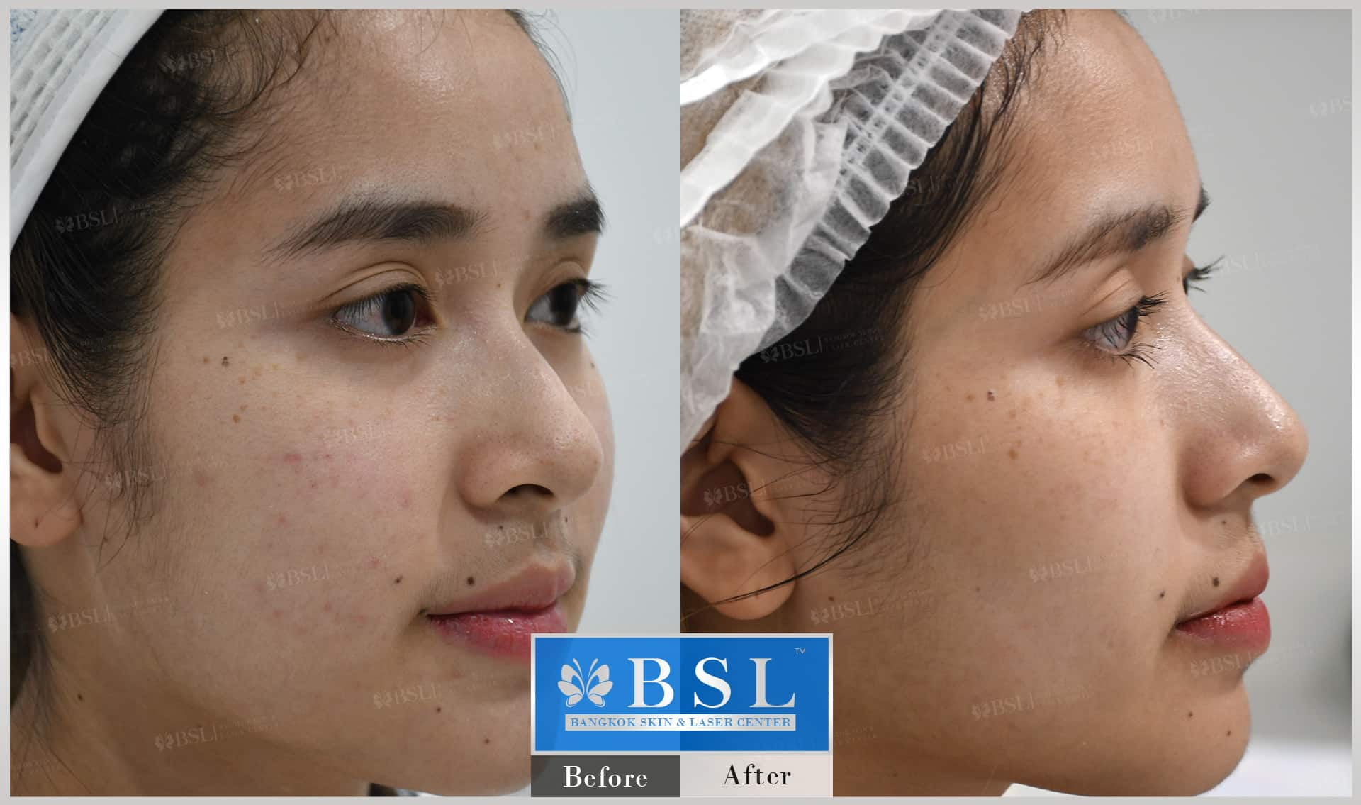 before-after-results-acne-002