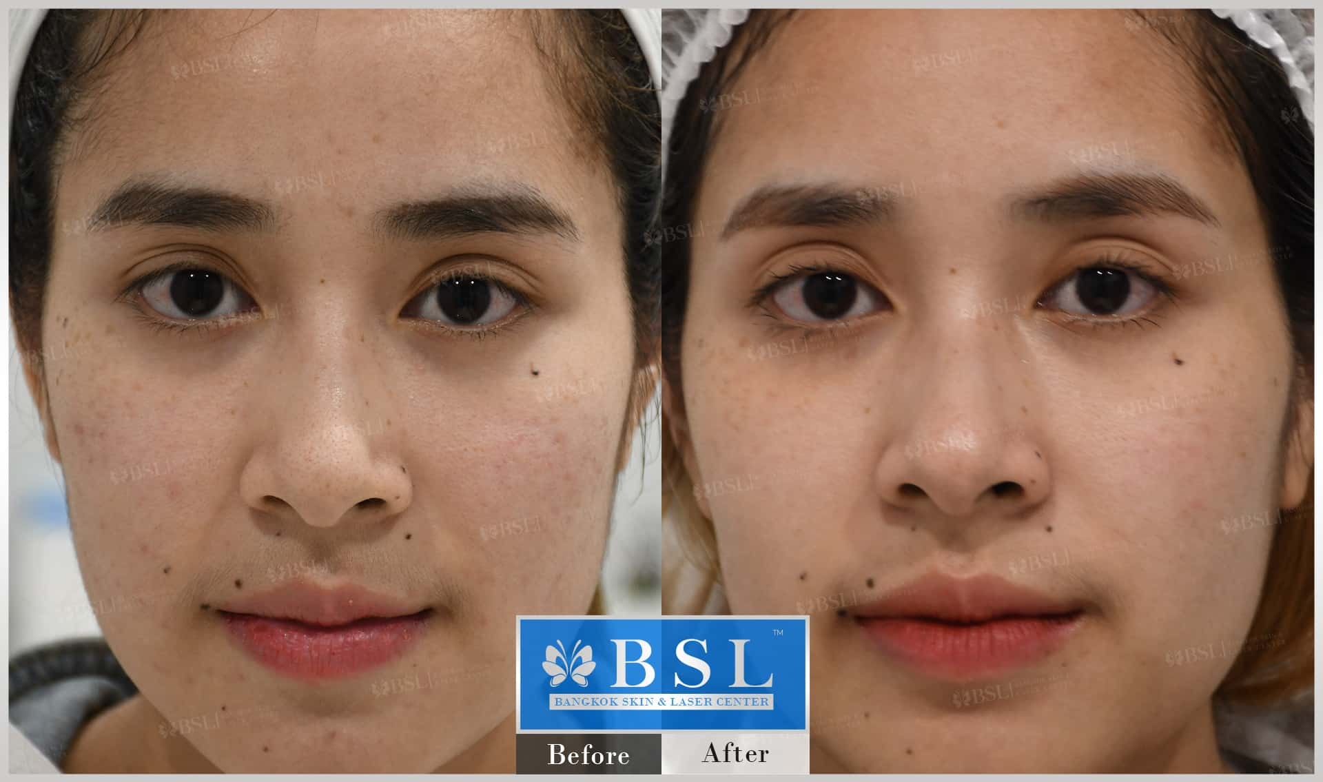 before-after-results-acne-003