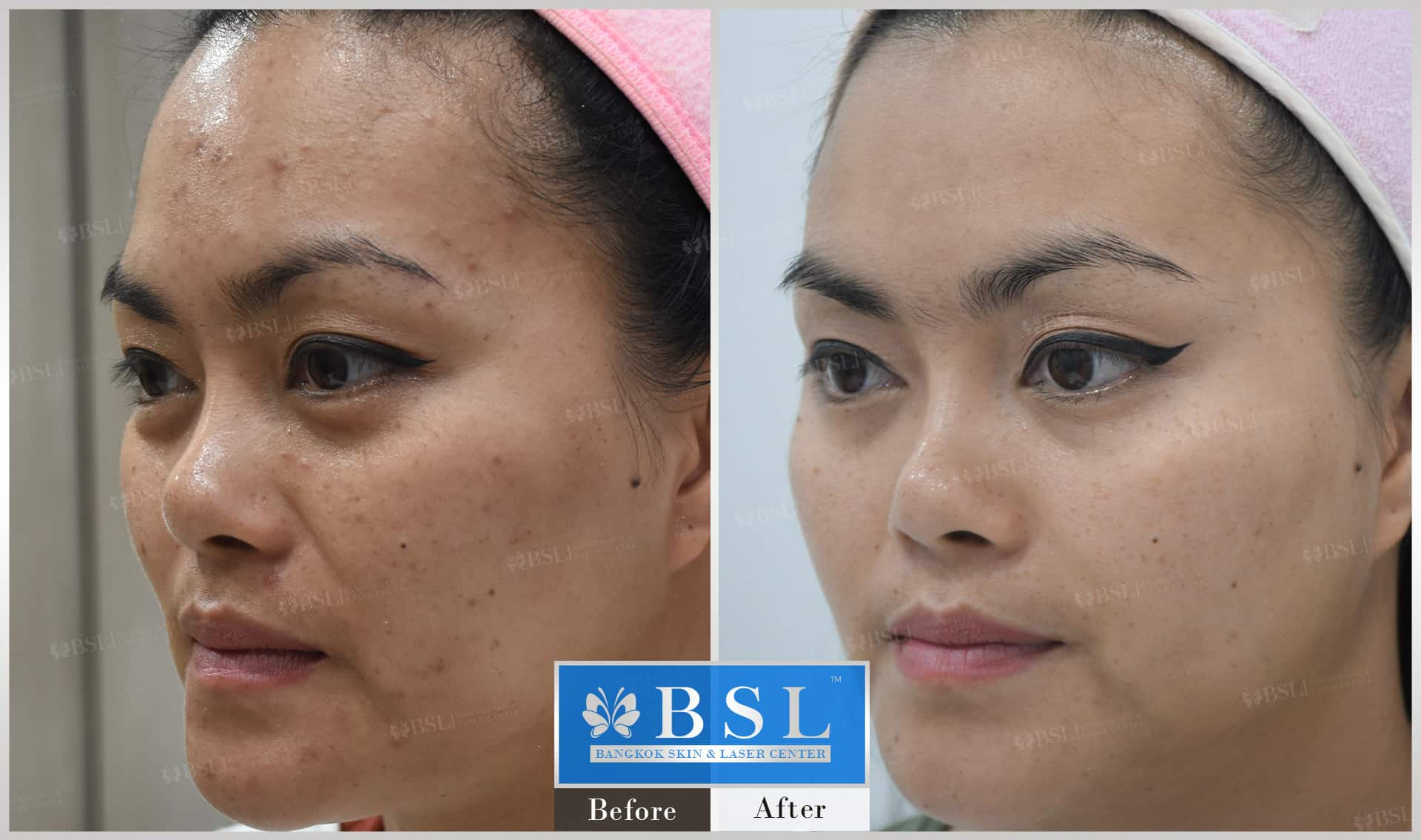 before-after-results-acne-004