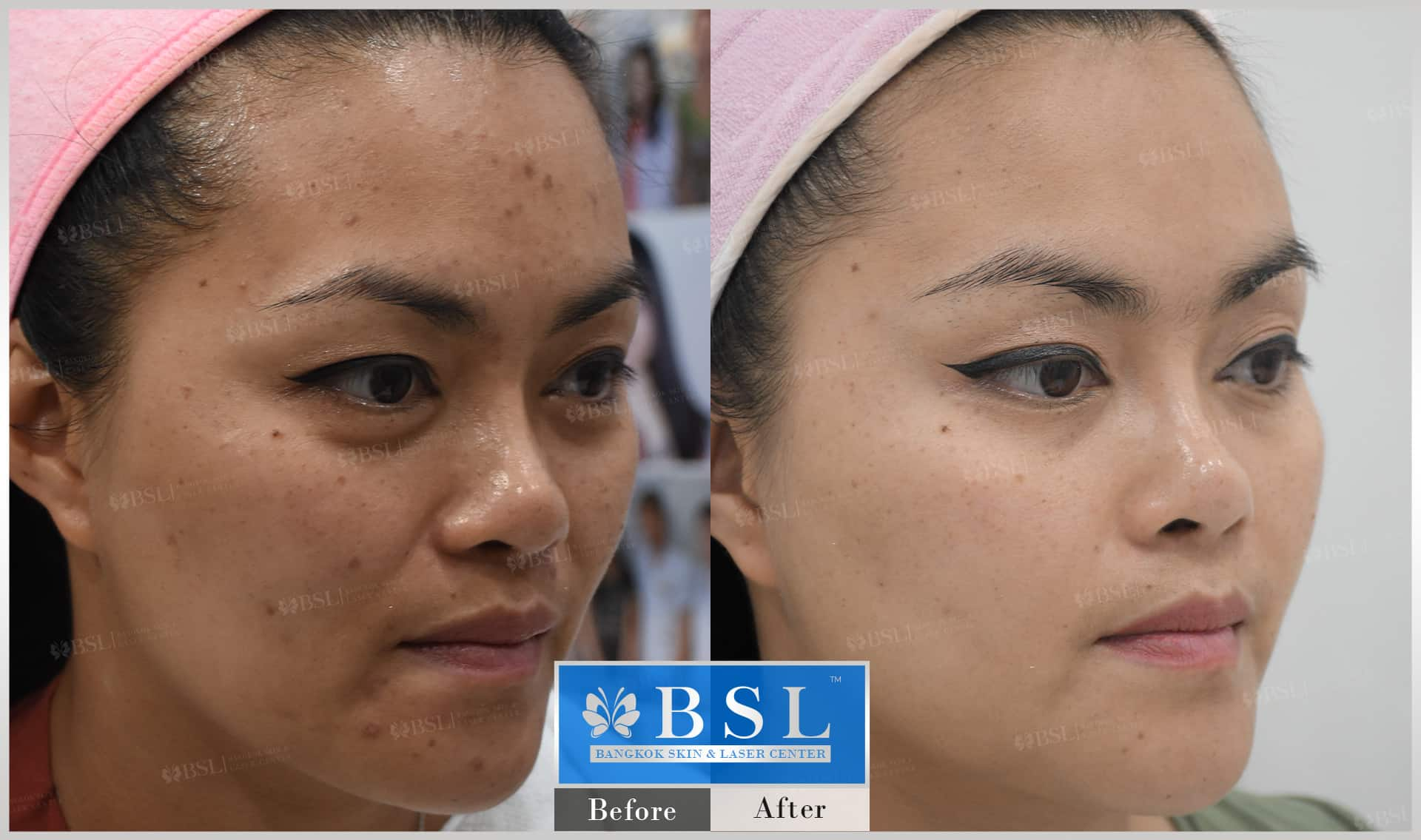 before-after-results-acne-005