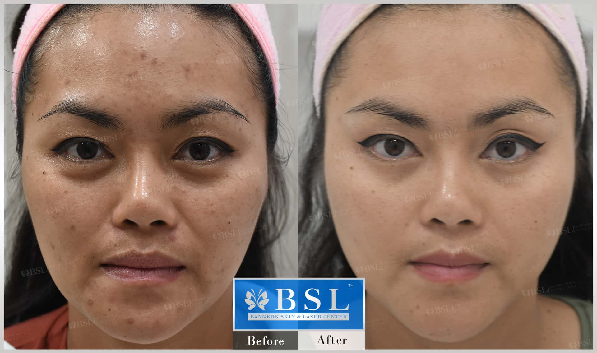 before-after-results-acne-006