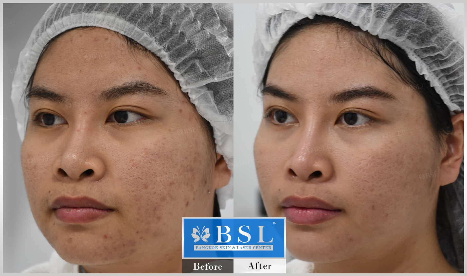 before-after-results-acne-007