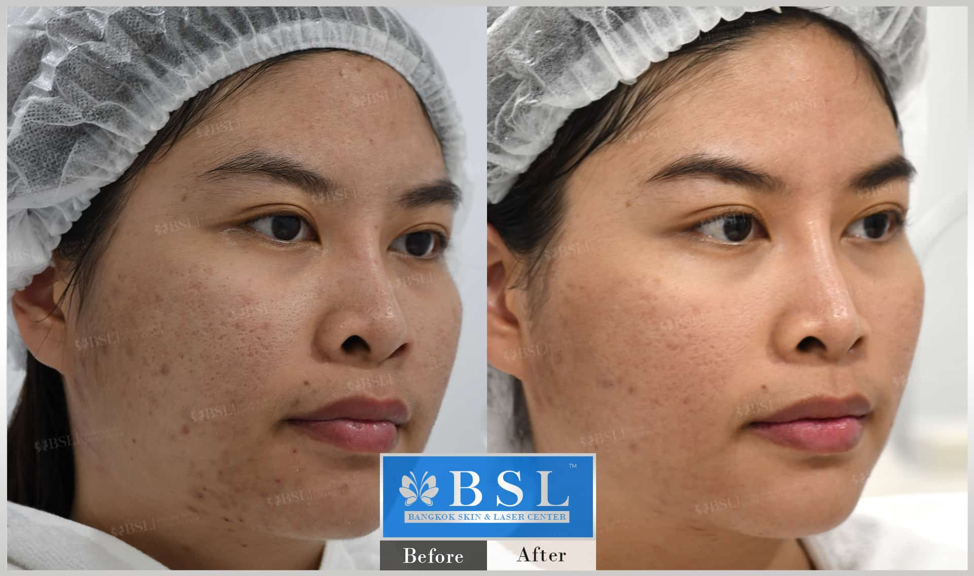 before-after-results-acne-008