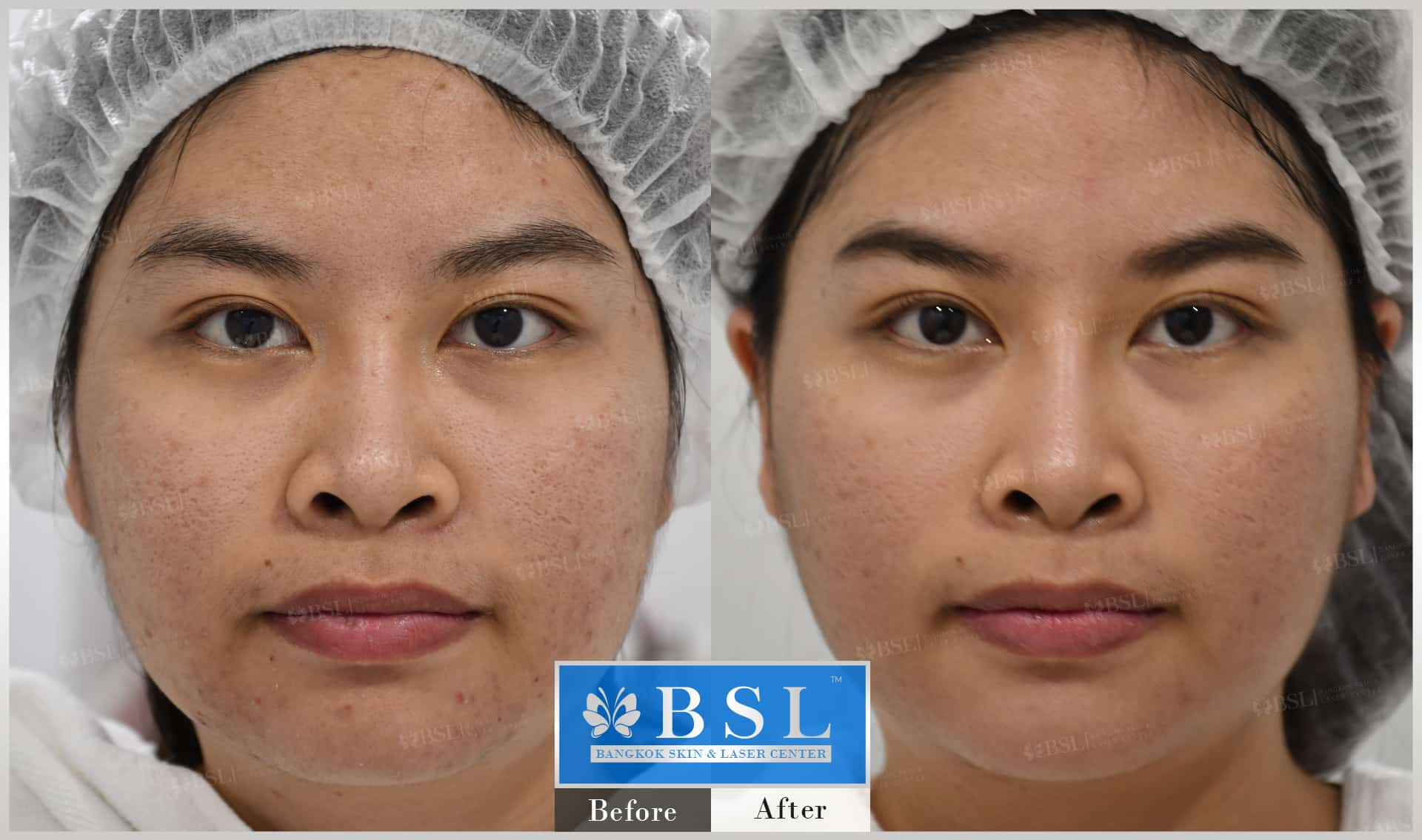 before-after-results-acne-009