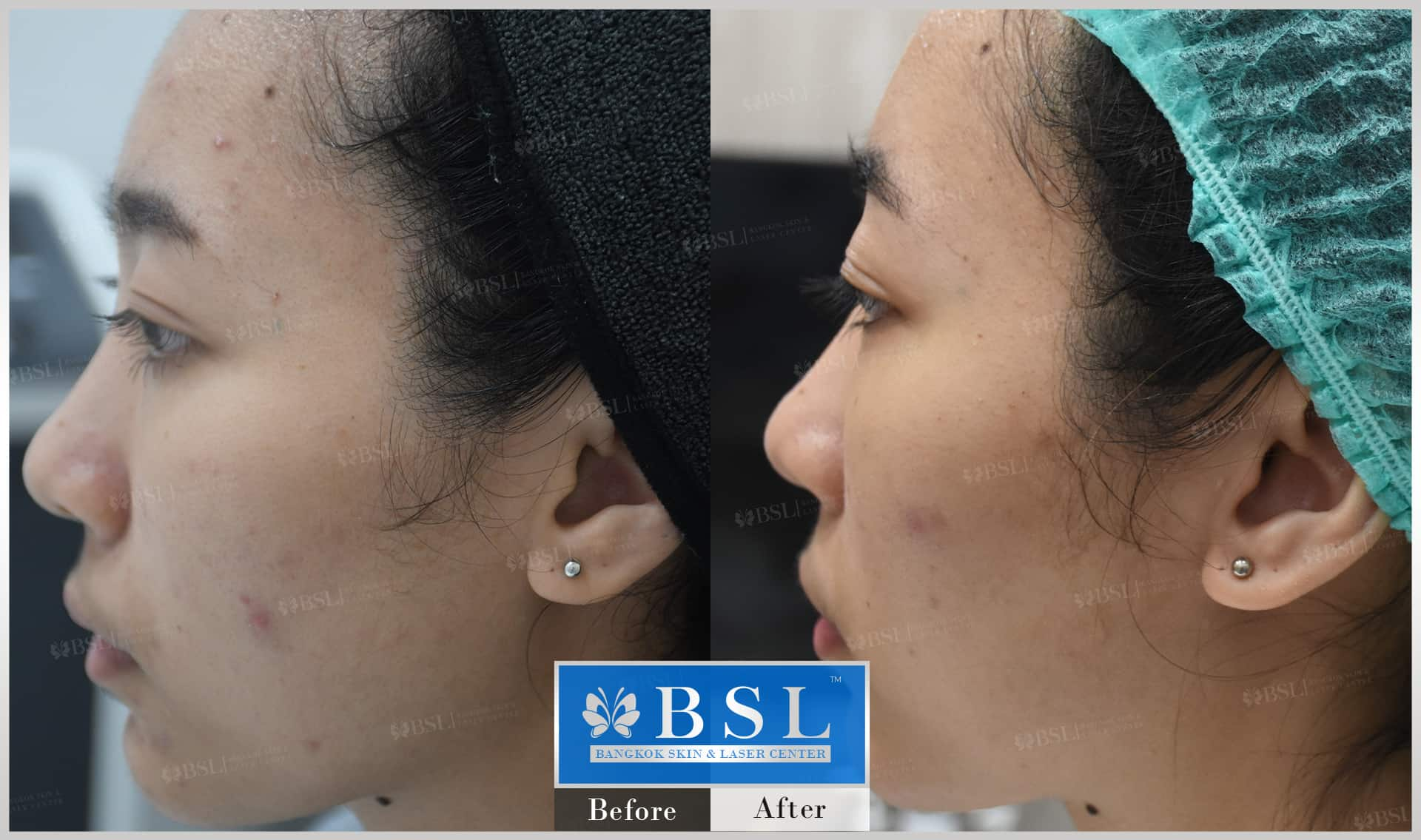 before-after-results-acne-010