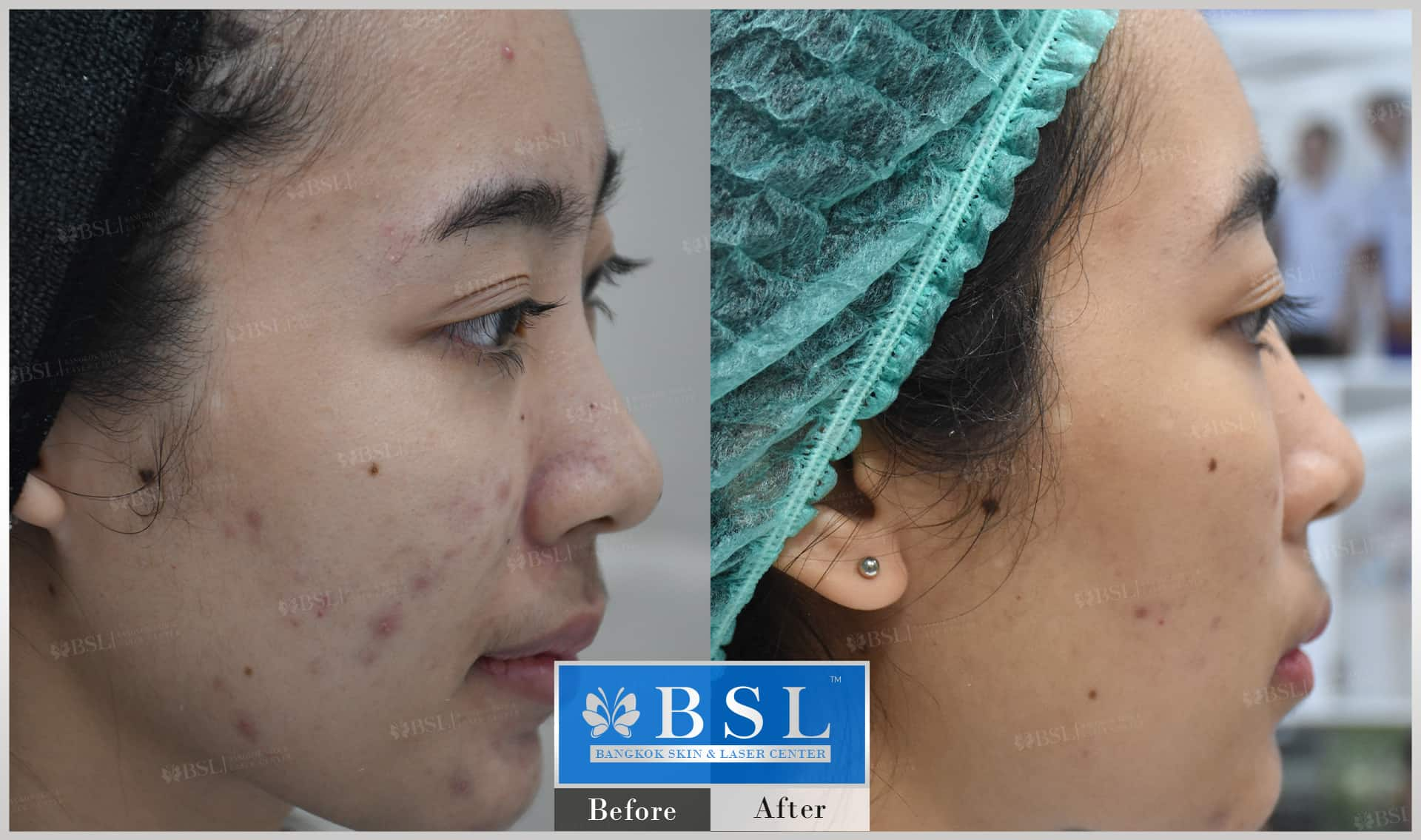 before-after-results-acne-011