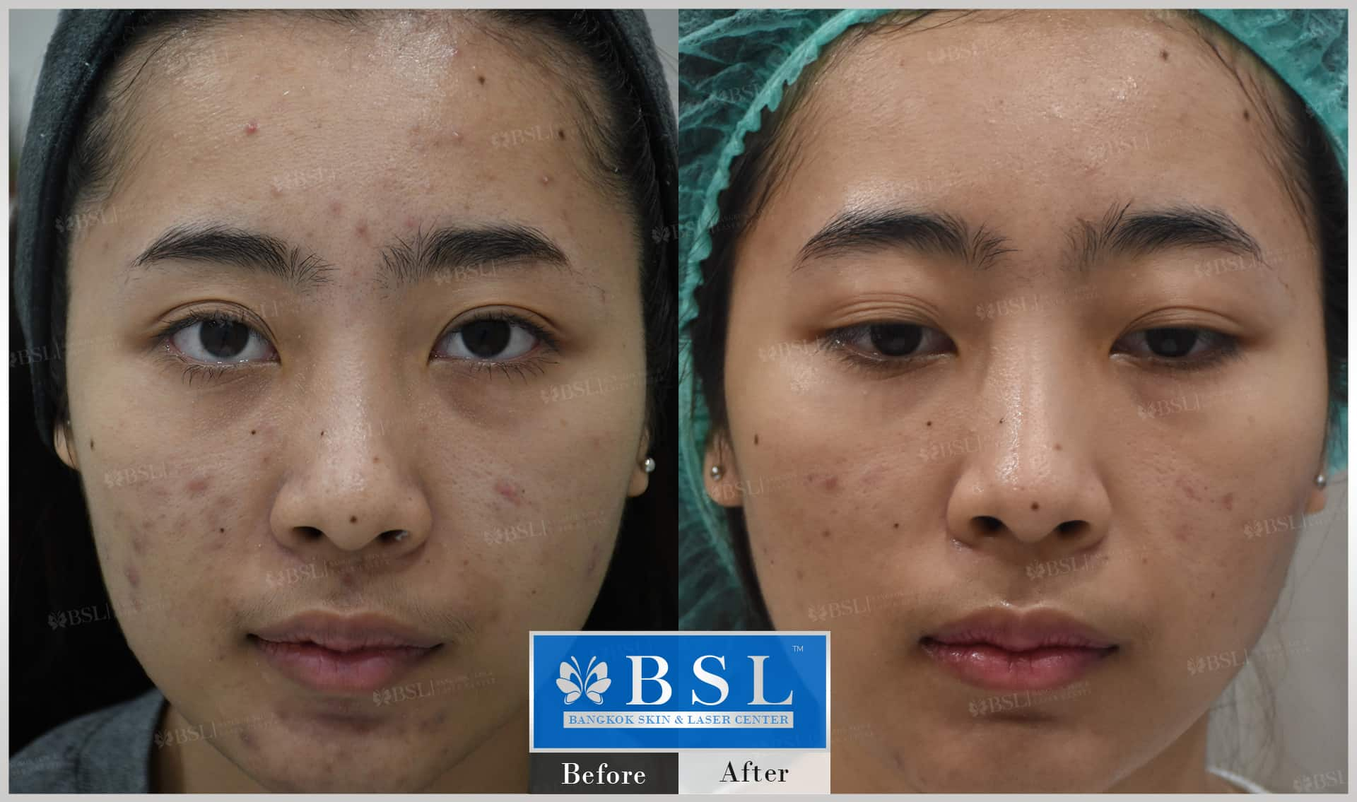 before-after-results-acne-012