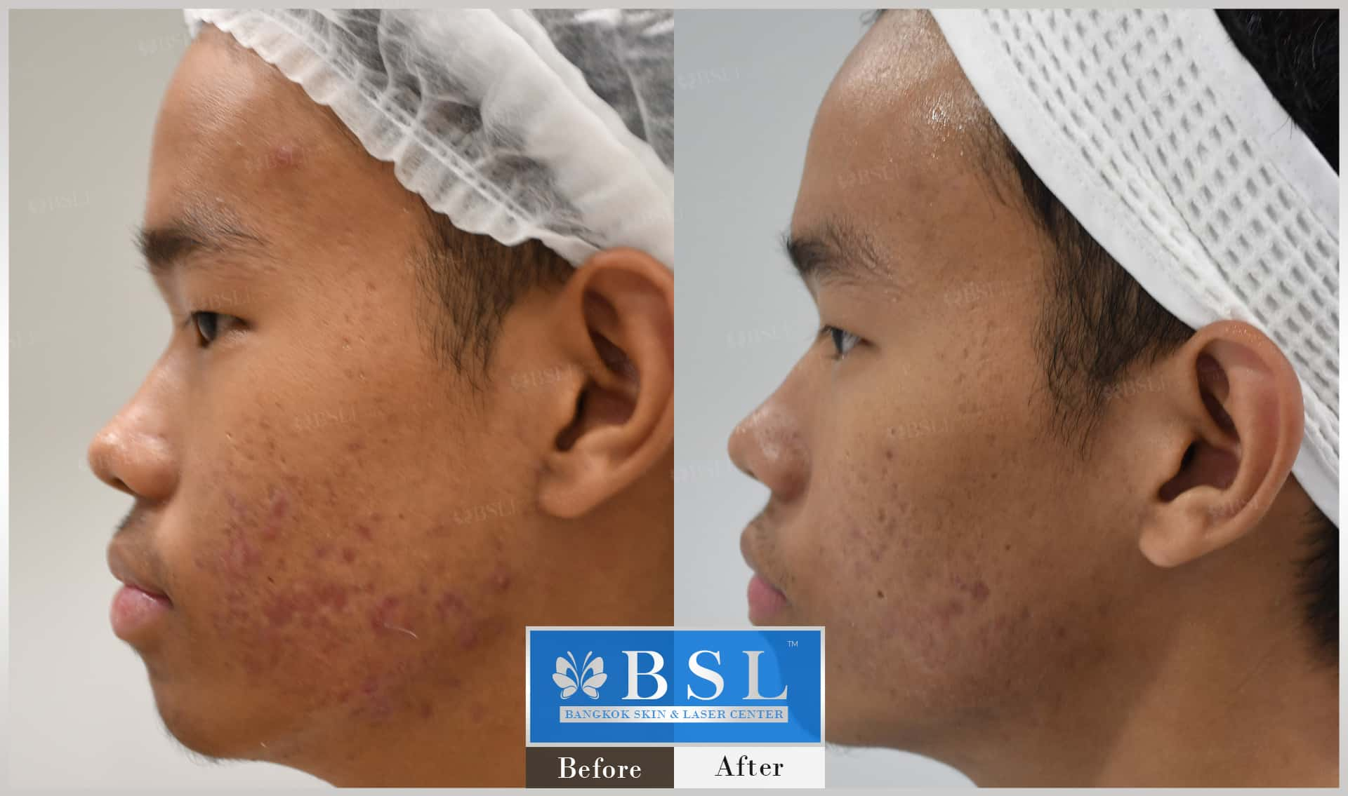 before-after-results-acne-013