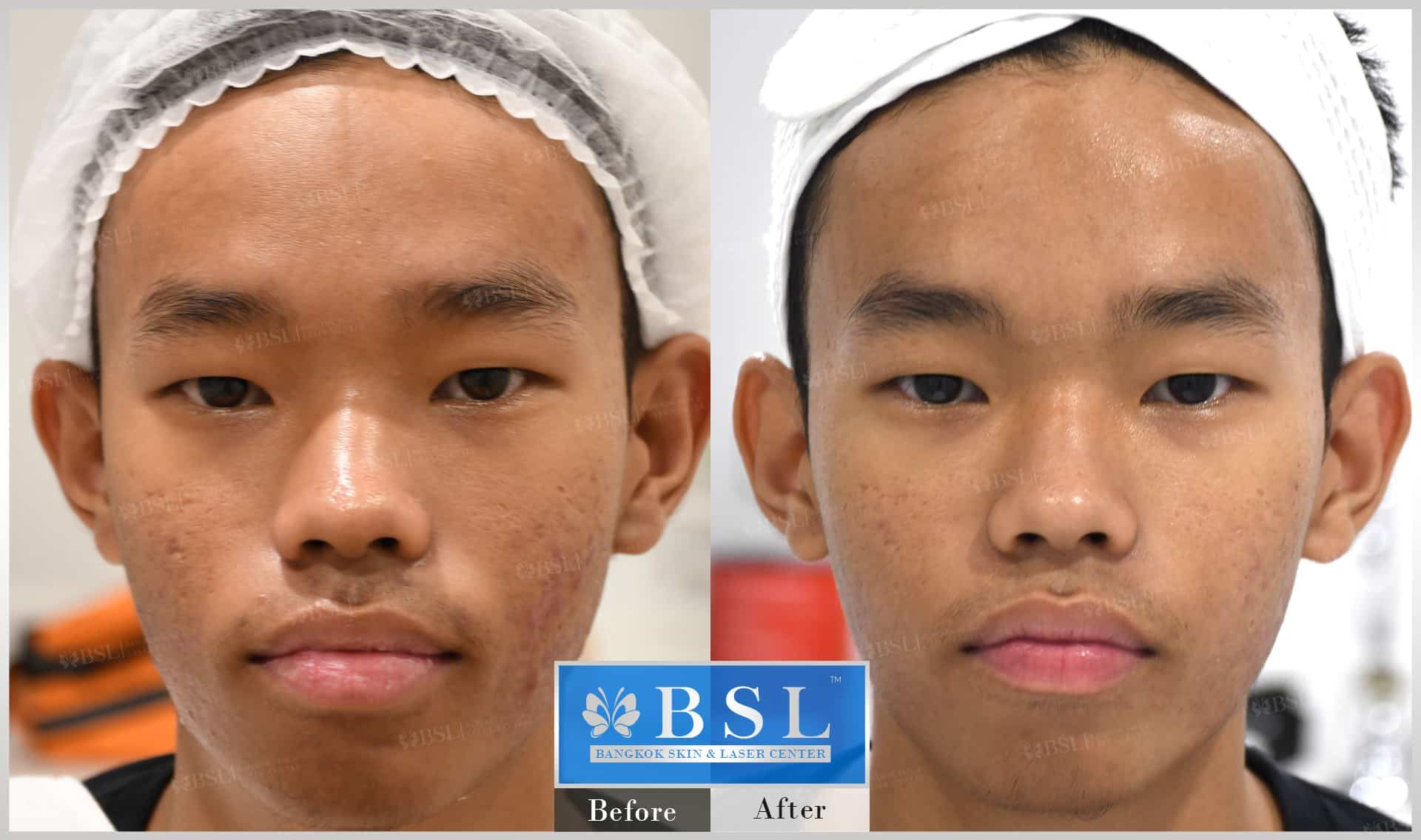 before-after-results-acne-015
