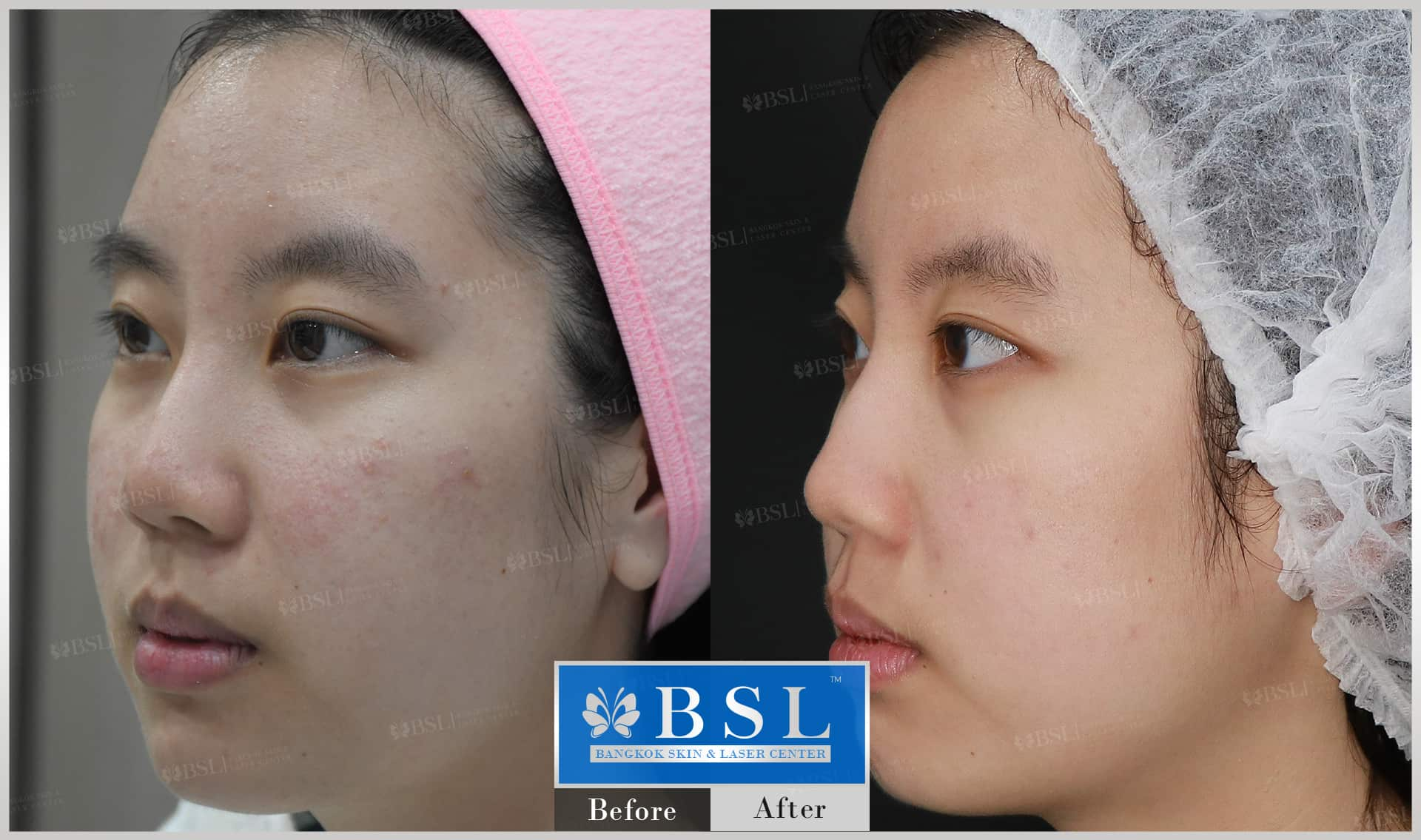before-after-results-acne-016