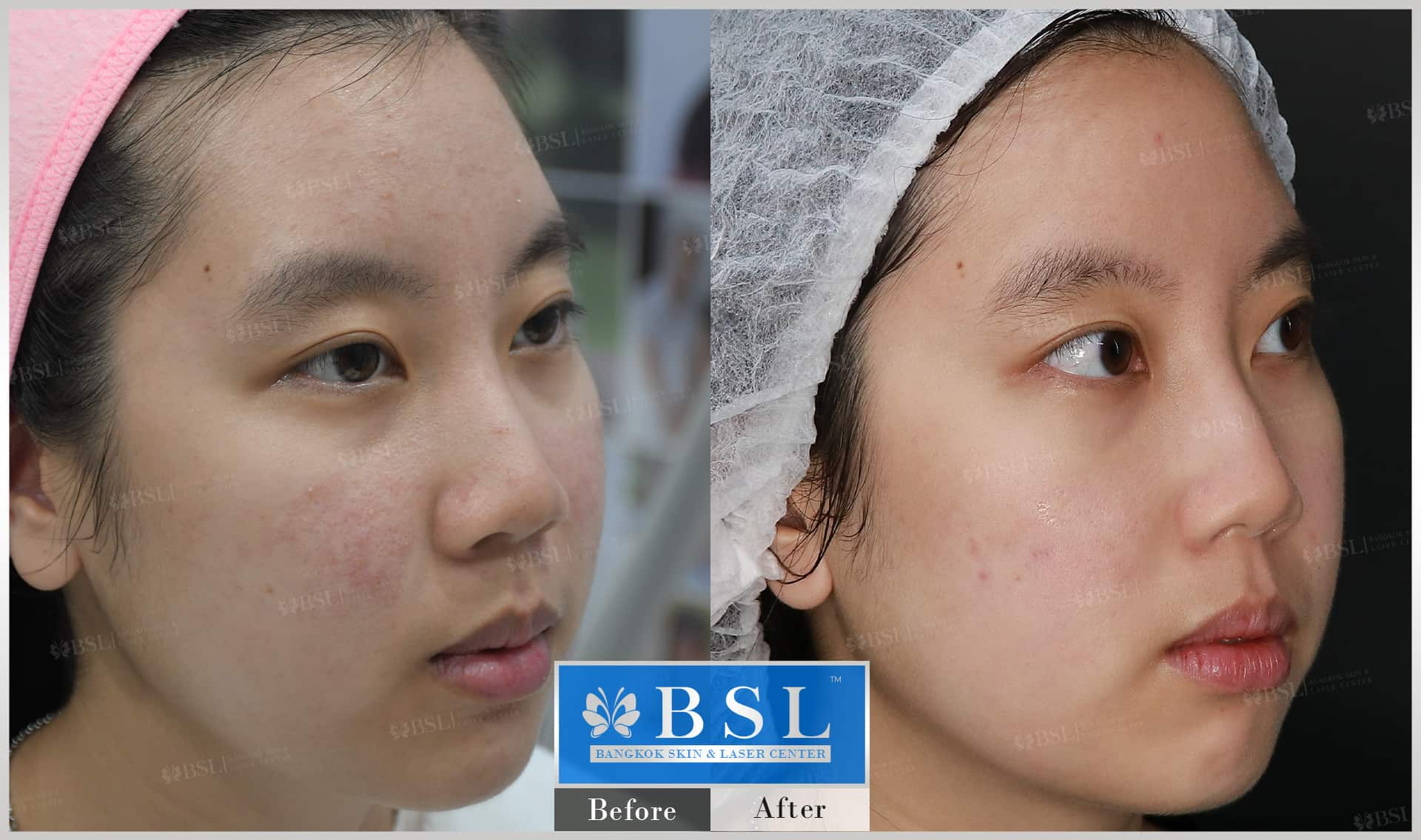 before-after-results-acne-017