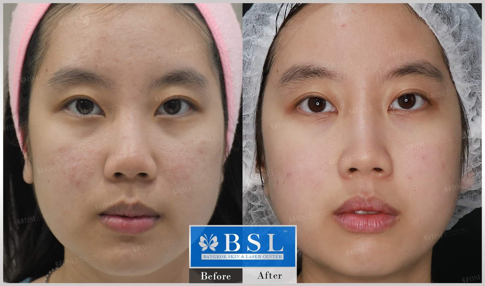 before-after-results-acne-018