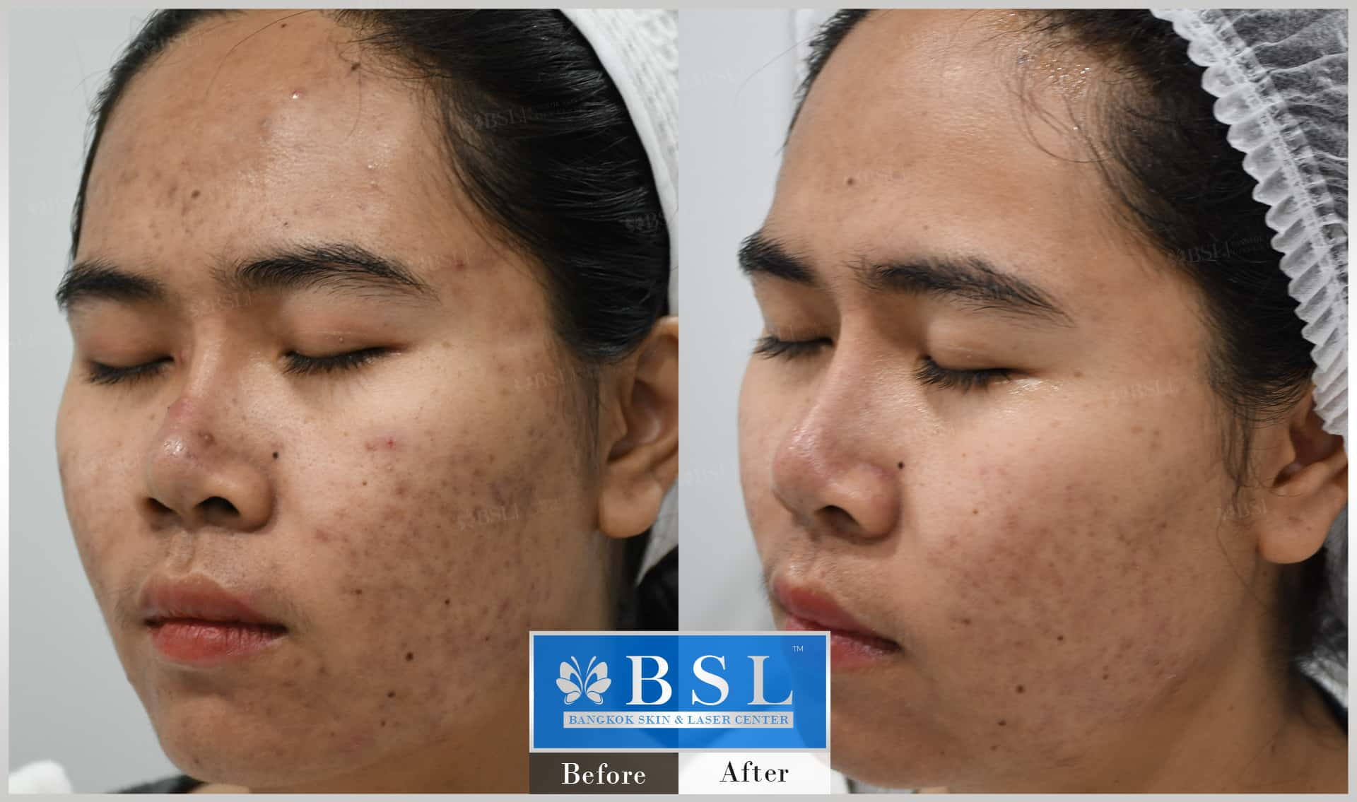 before-after-results-acne-019