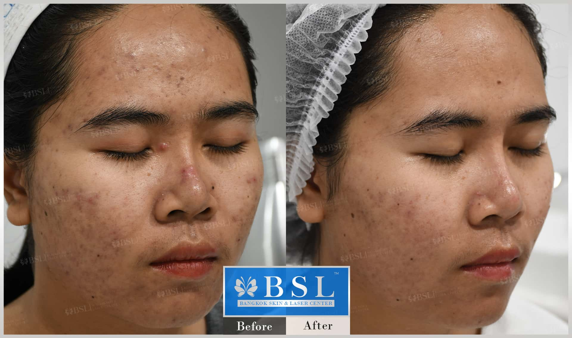 before-after-results-acne-020