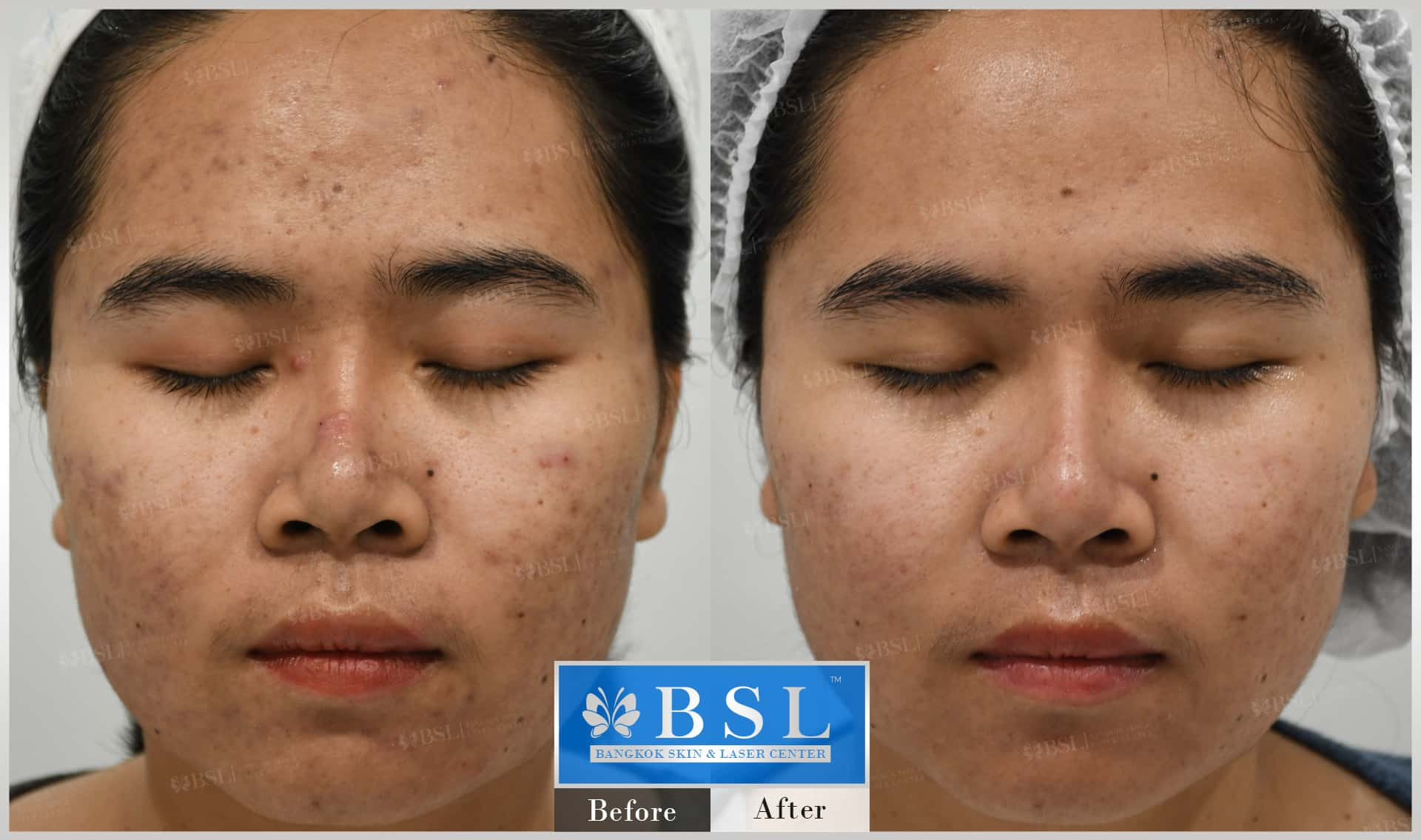 before-after-results-acne-021