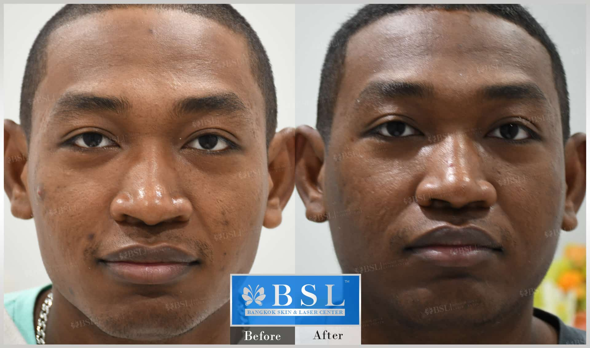 before-after-results-acne-024