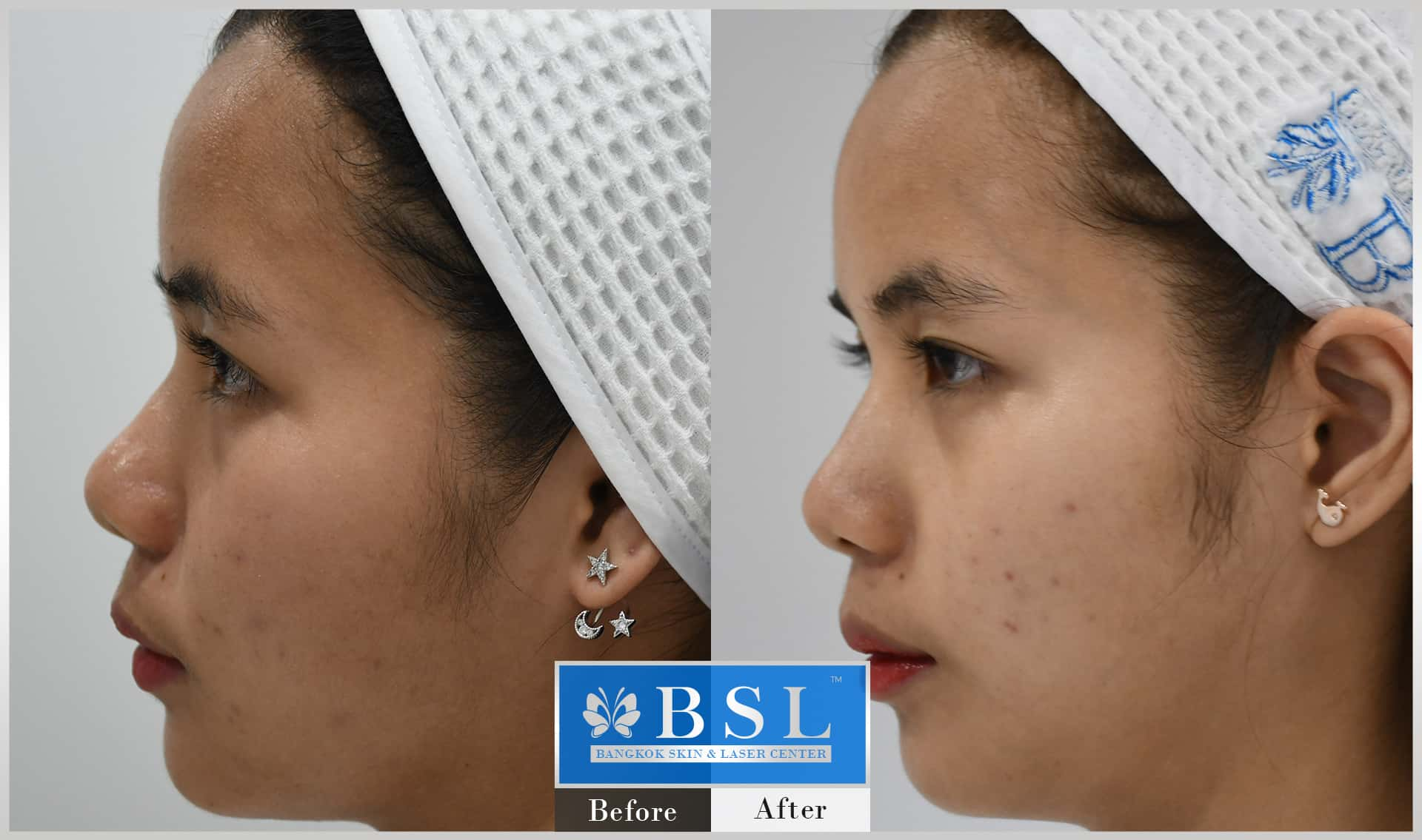 before-after-results-acne-025