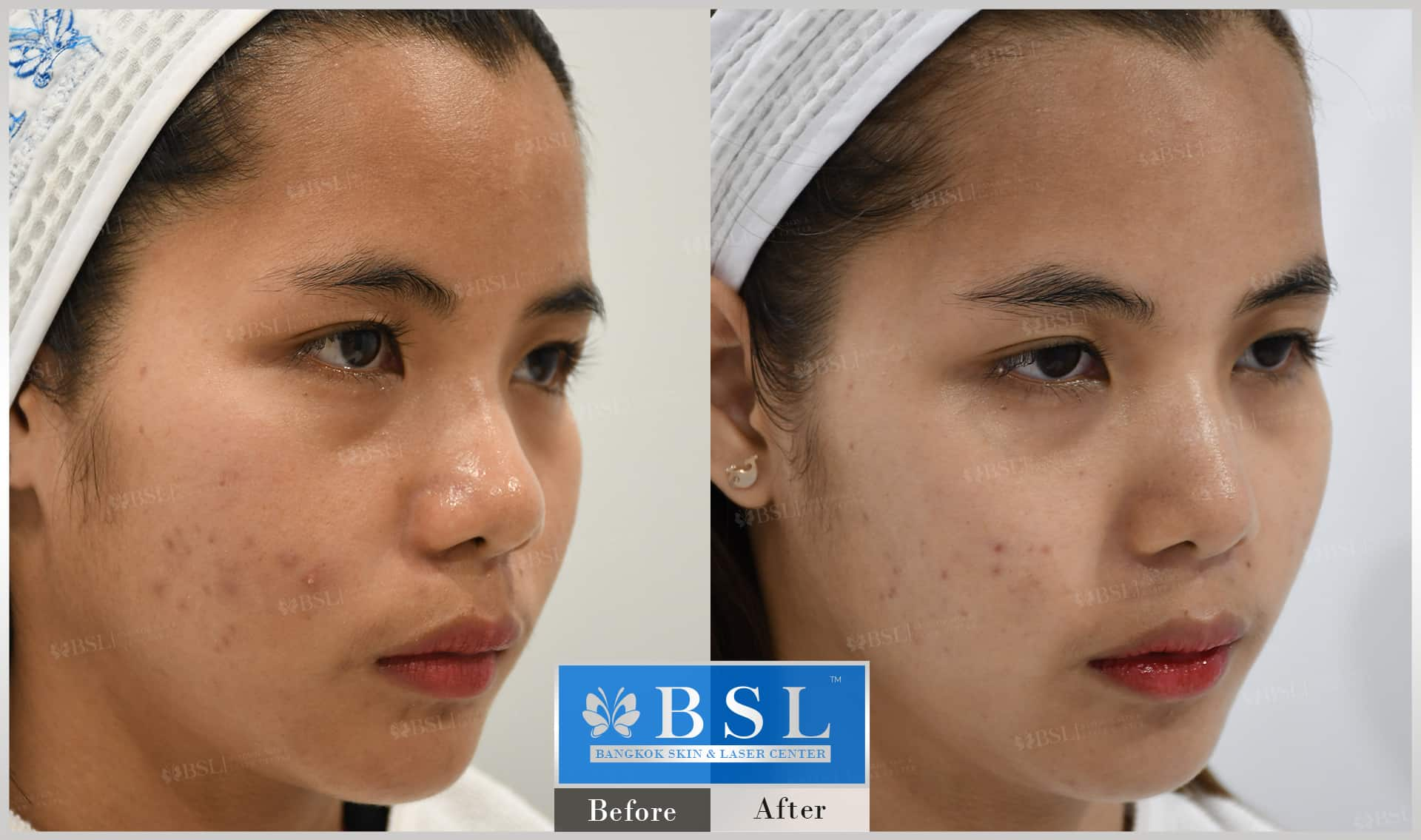 before-after-results-acne-026