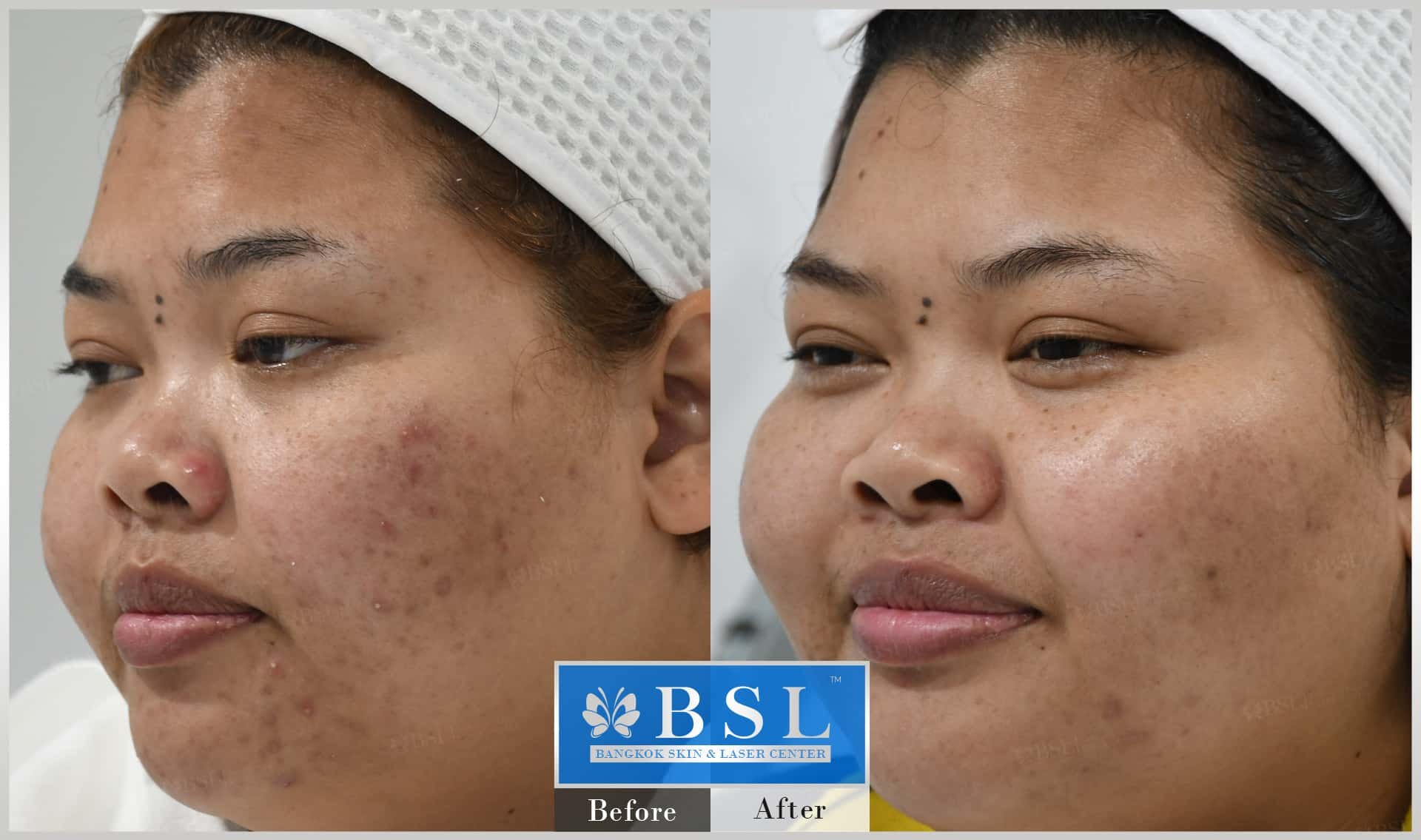 before-after-results-acne-028