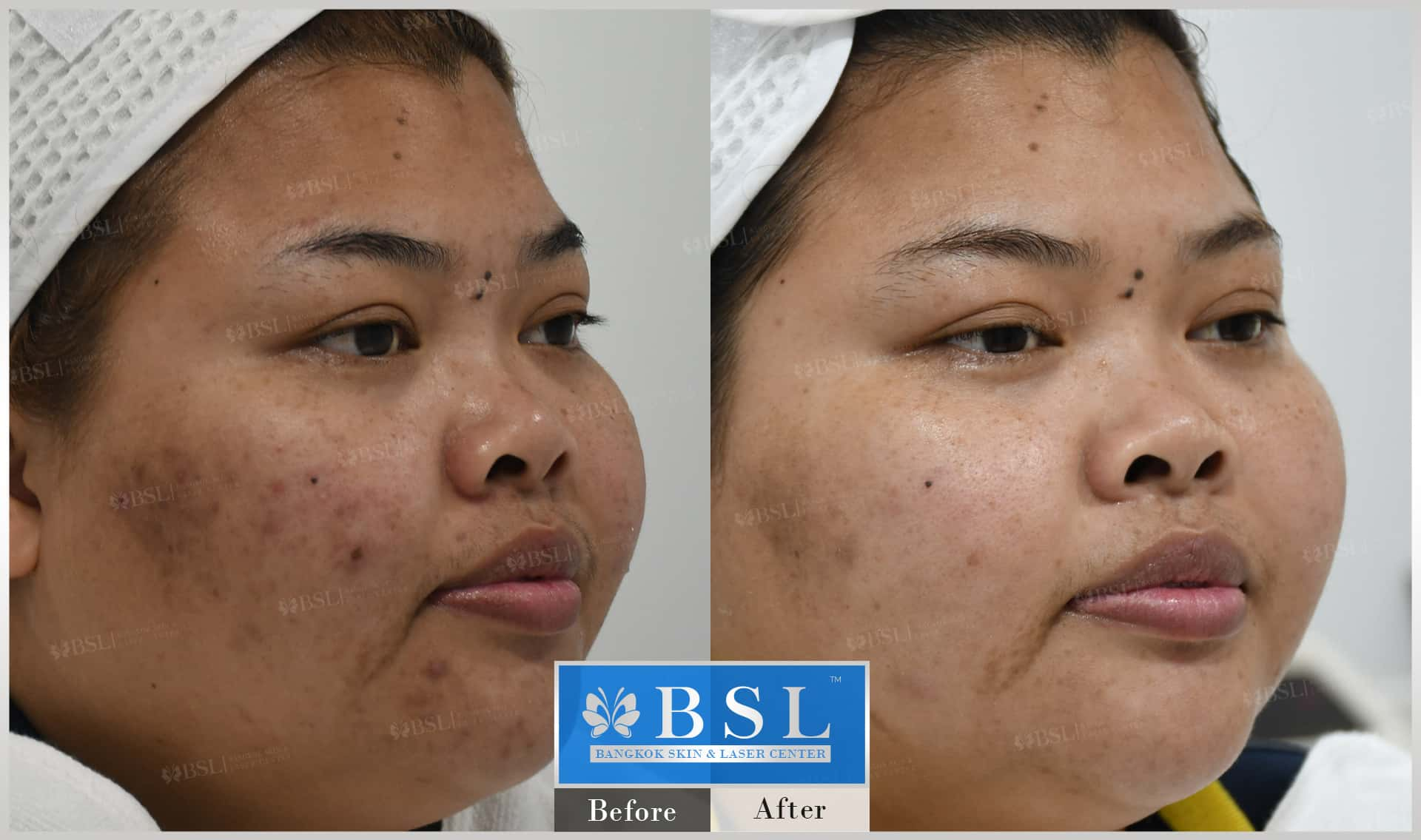 before-after-results-acne-029