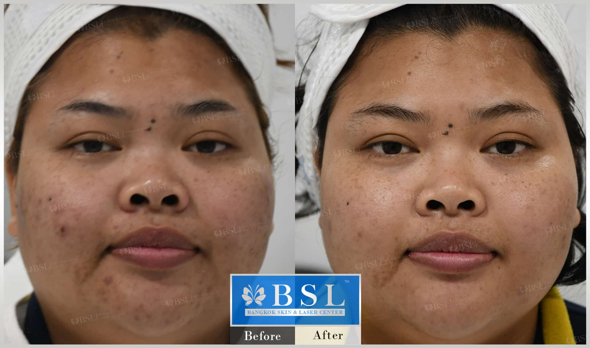 before-after-results-acne-030