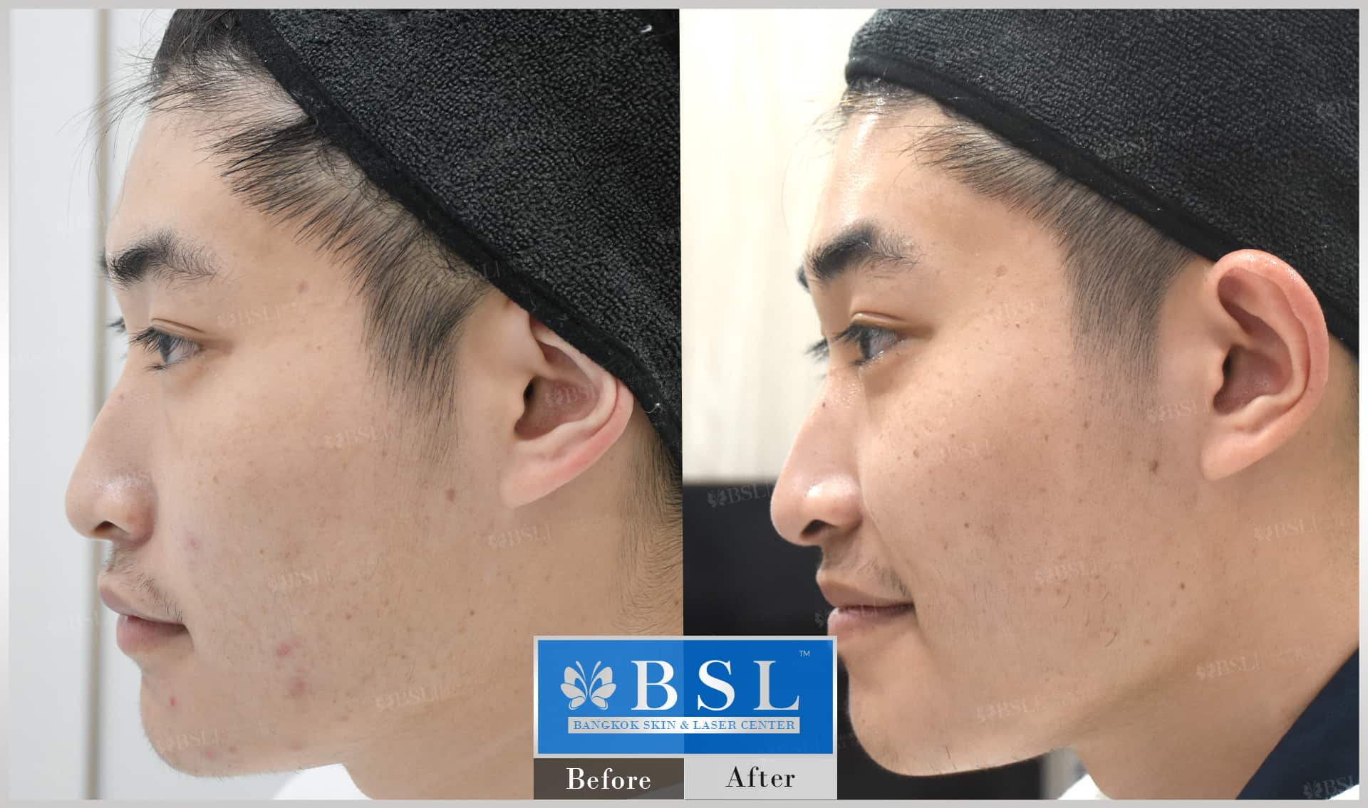 before-after-results-acne-031