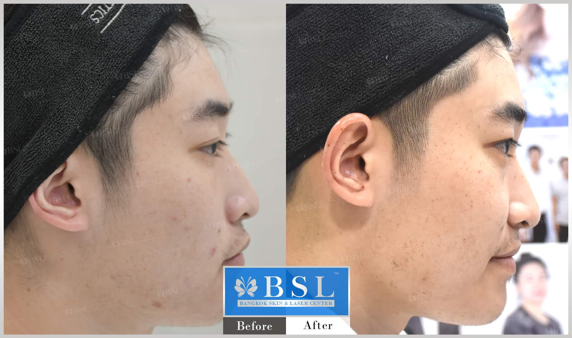 before-after-results-acne-032