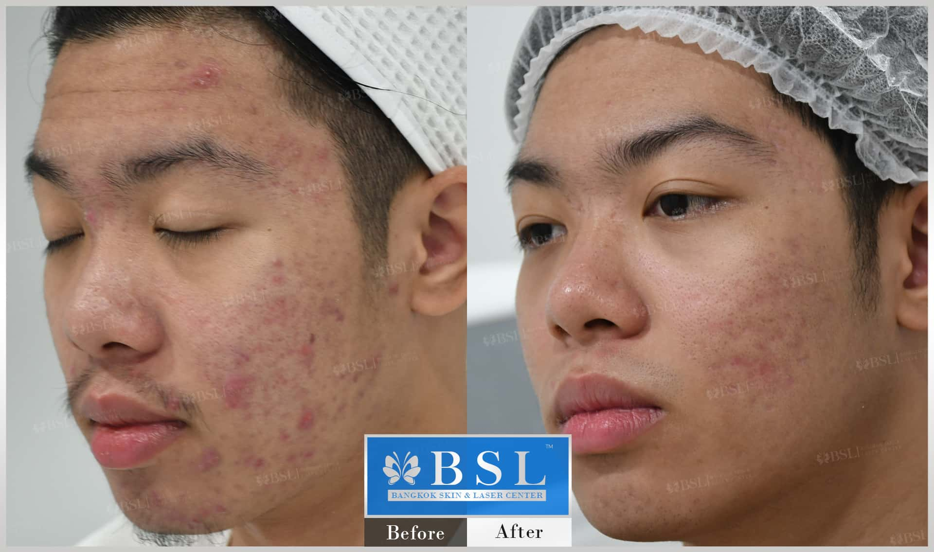 before-after-results-acne-034