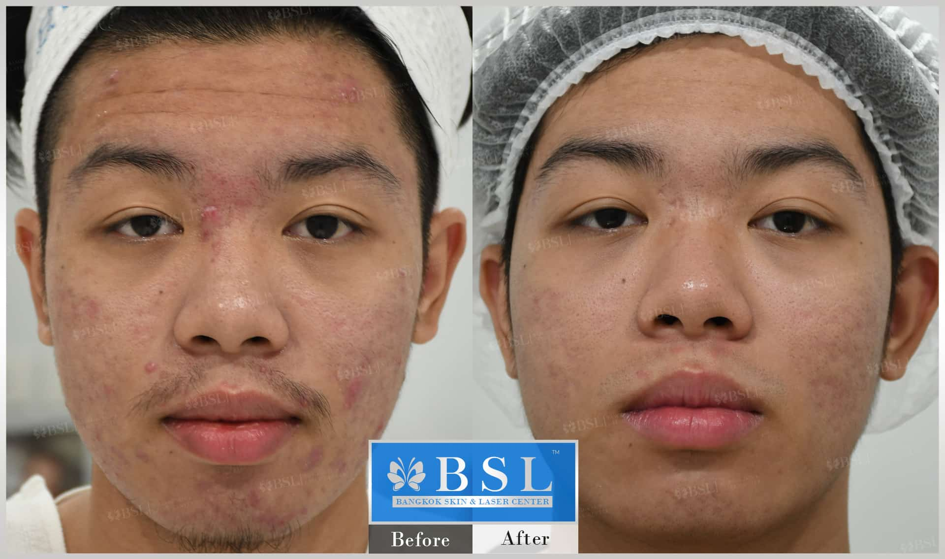 before-after-results-acne-036