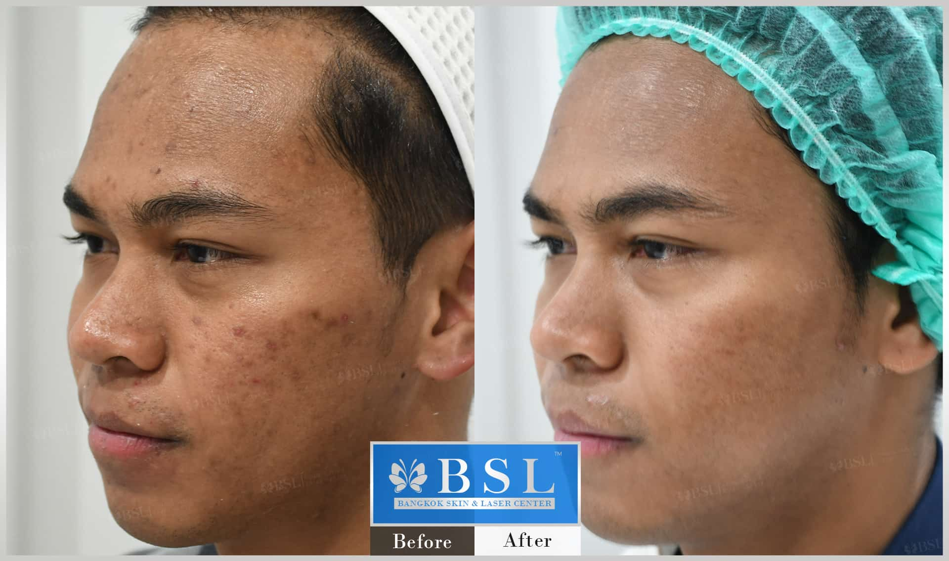 before-after-results-acne-037