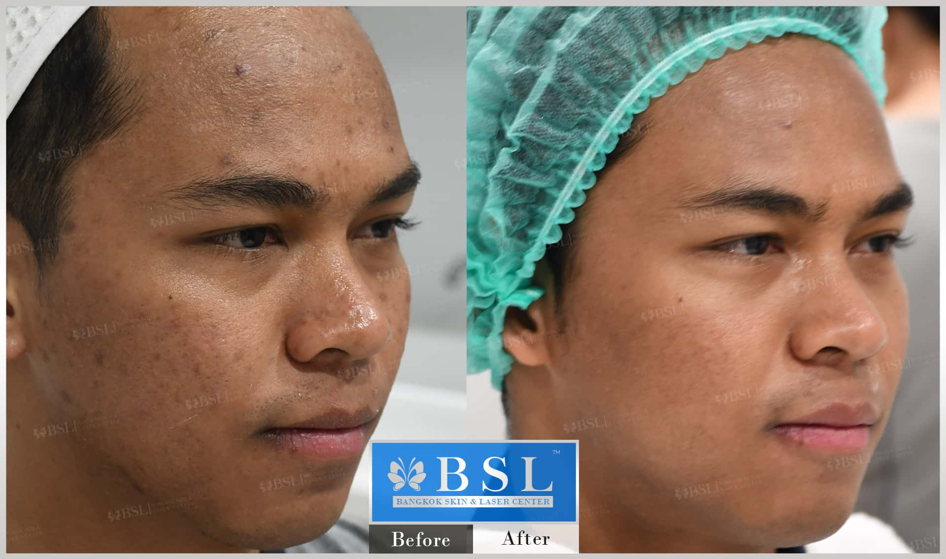 before-after-results-acne-038