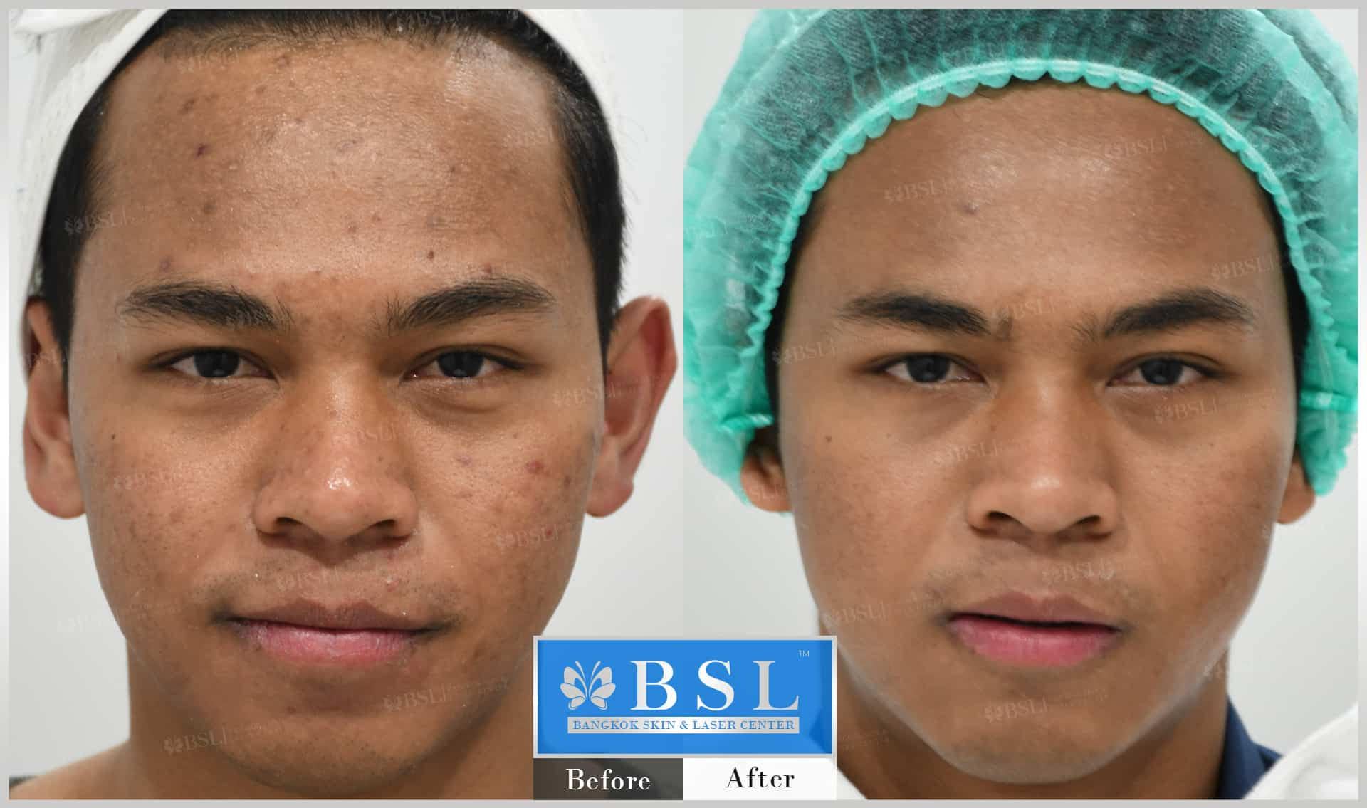 before-after-results-acne-039