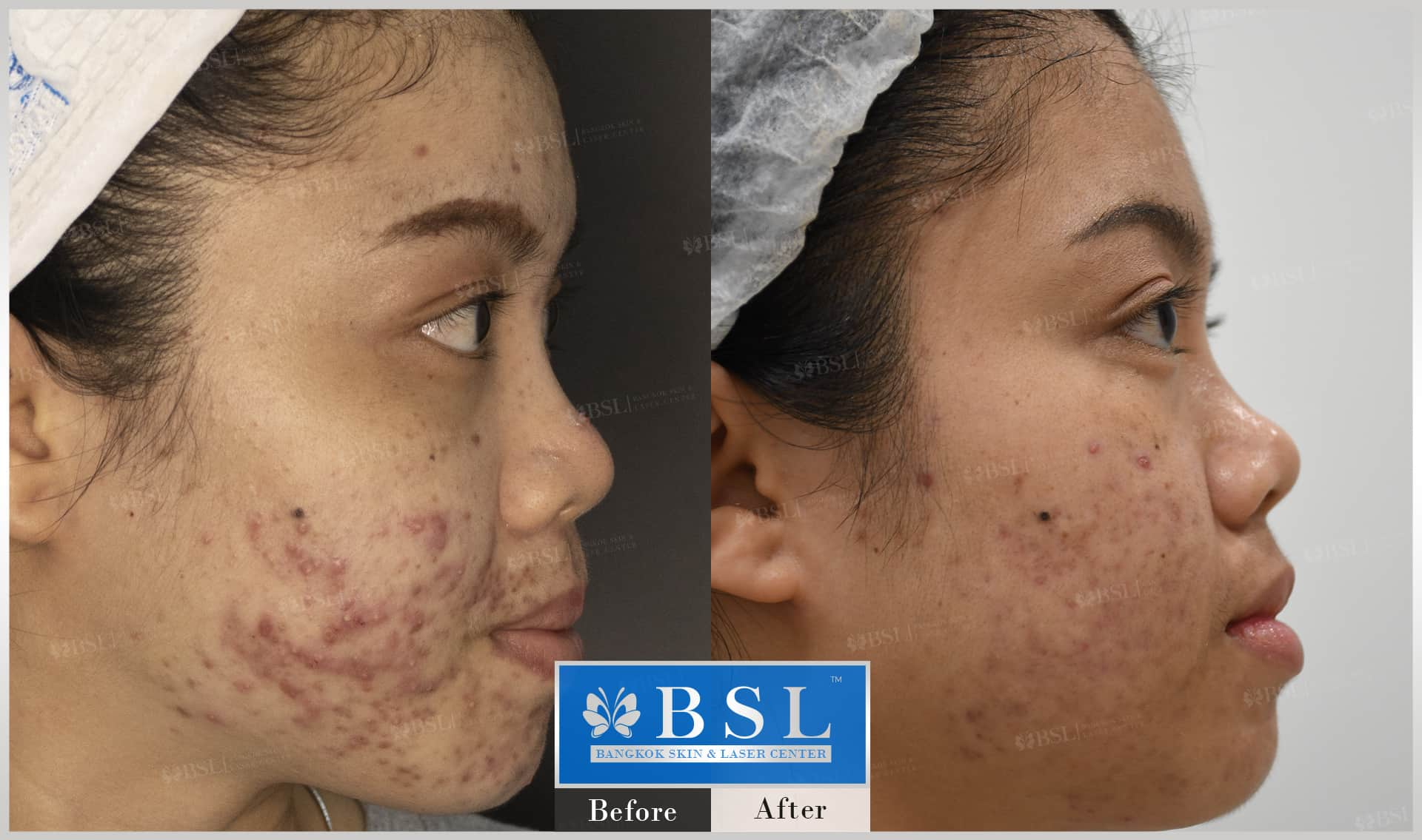 before-after-results-acne-041