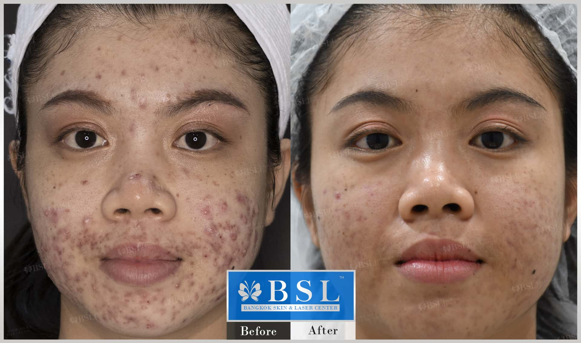 before-after-results-acne-042