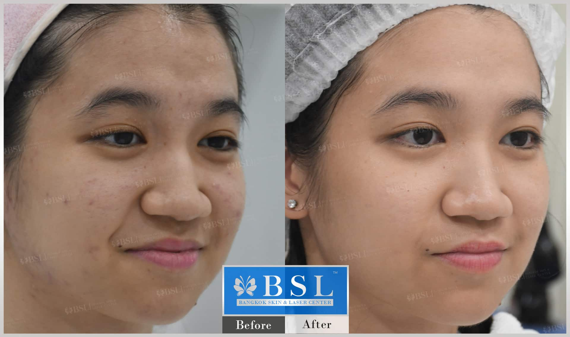 before-after-results-acne-044