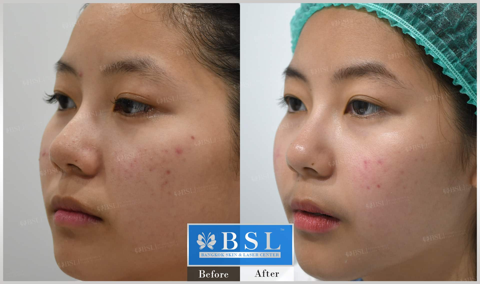 before-after-results-acne-046