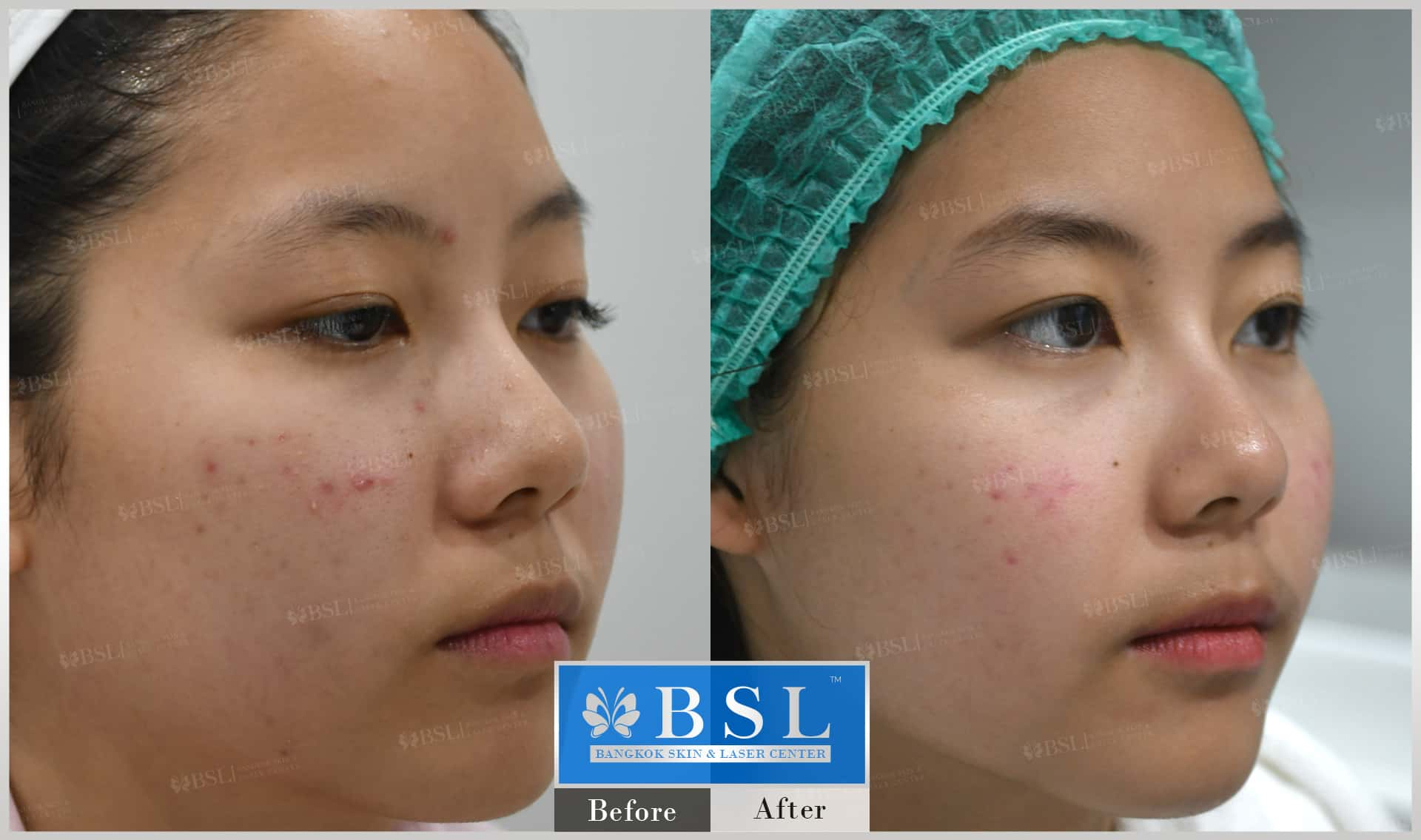 before-after-results-acne-047