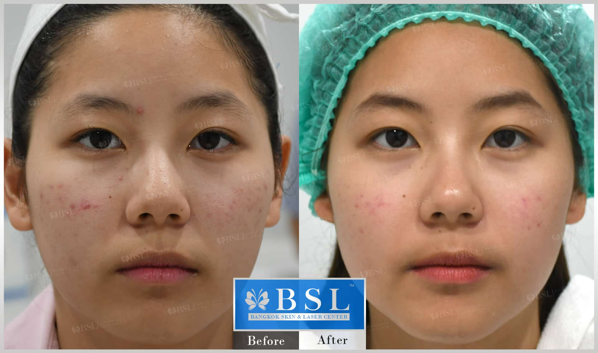 before-after-results-acne-048