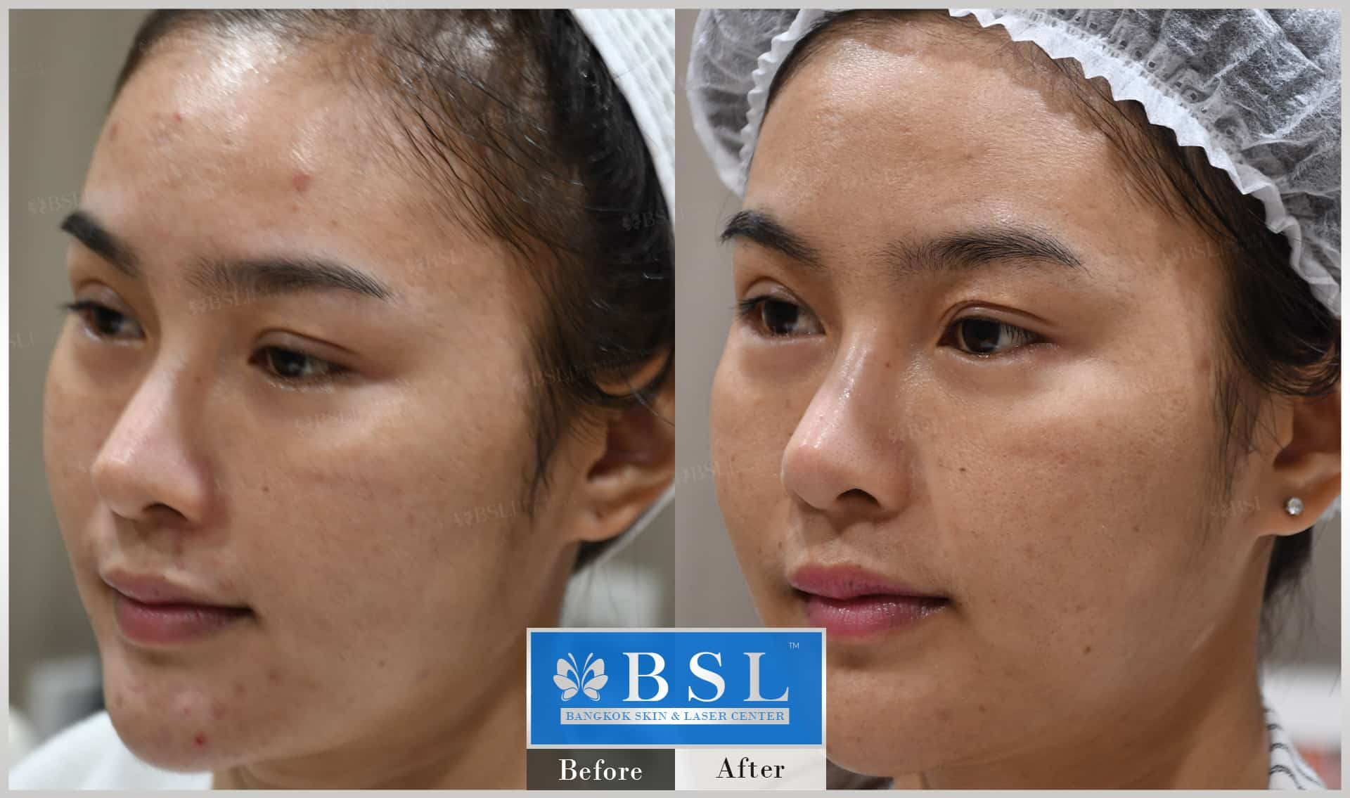 before-after-results-acne-049