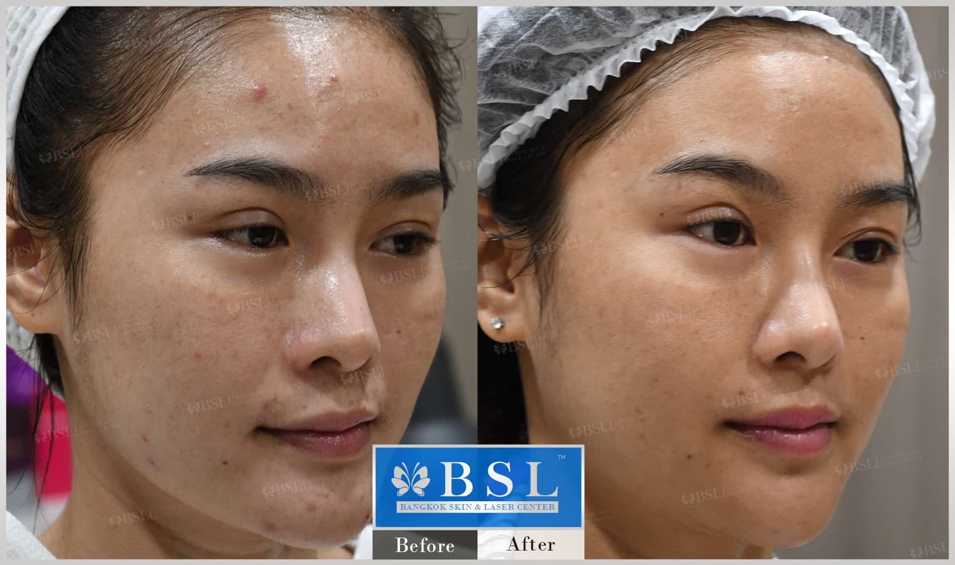 before-after-results-acne-050