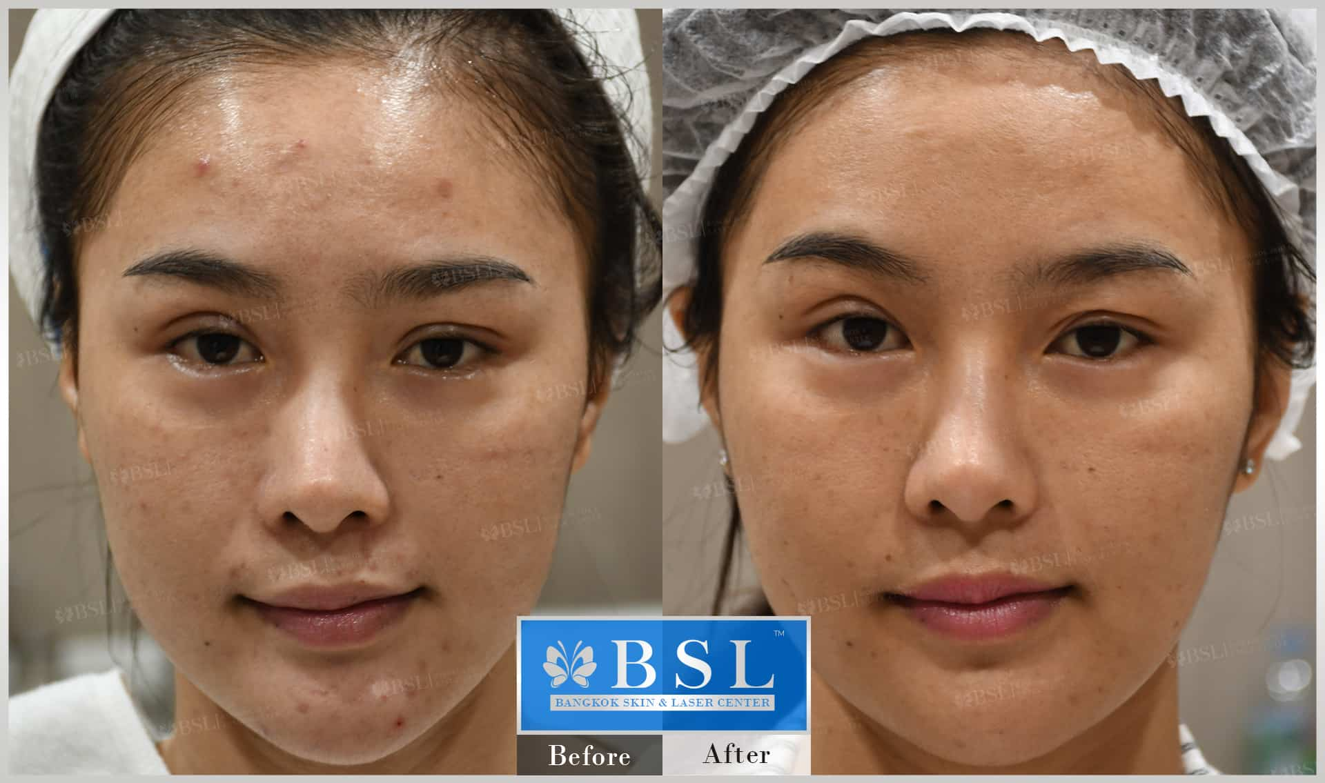 before-after-results-acne-051