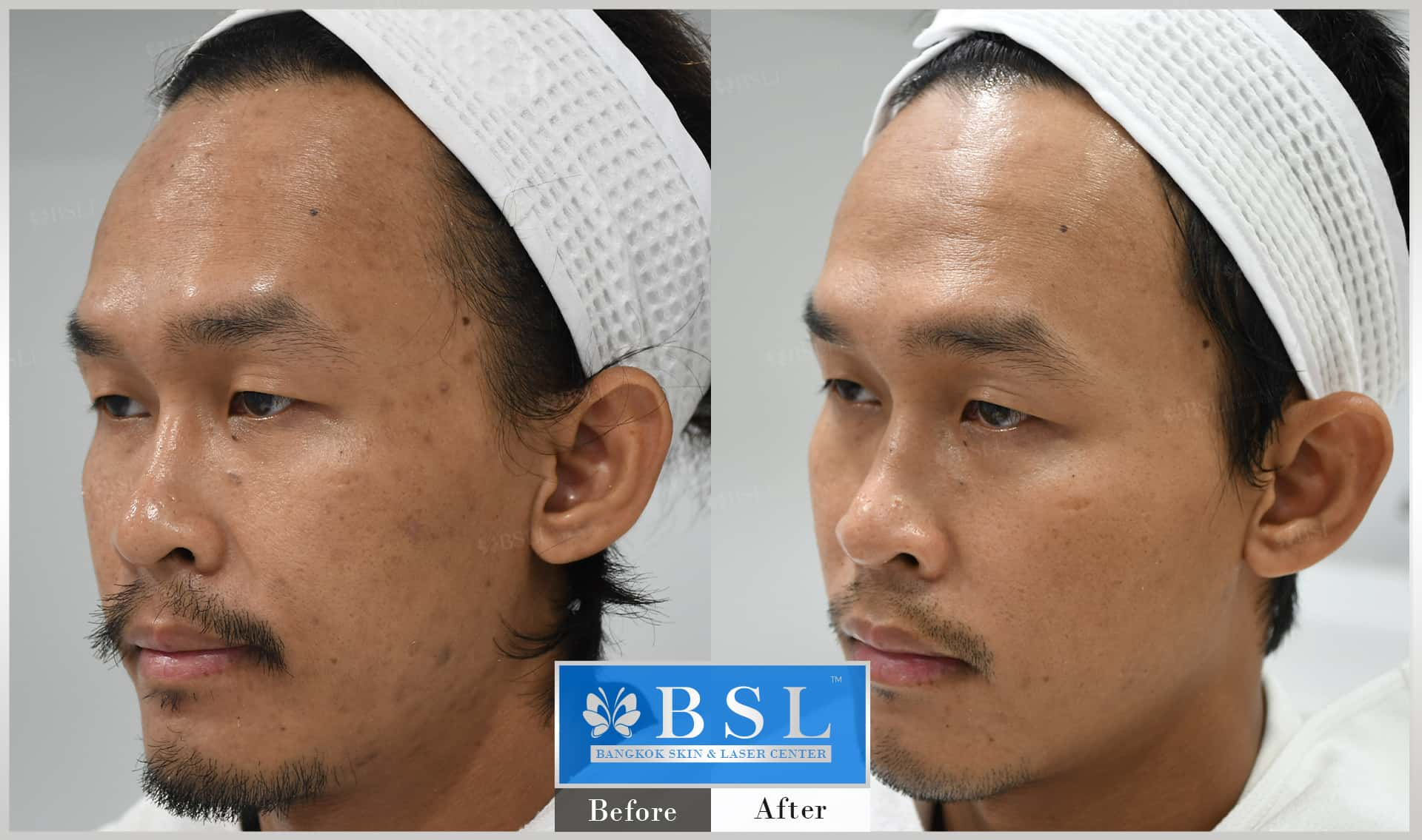 before-after-results-acne-052