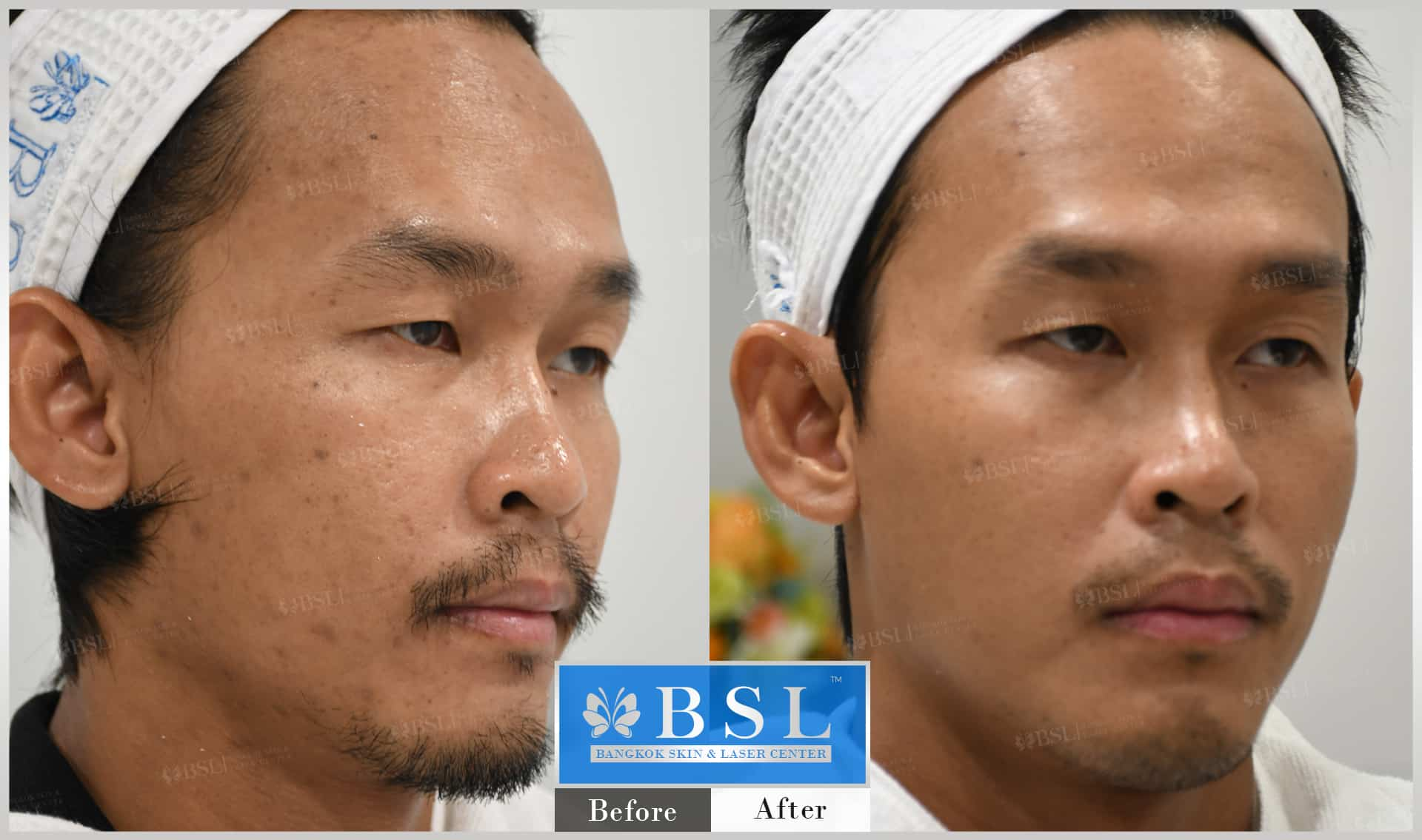 before-after-results-acne-053