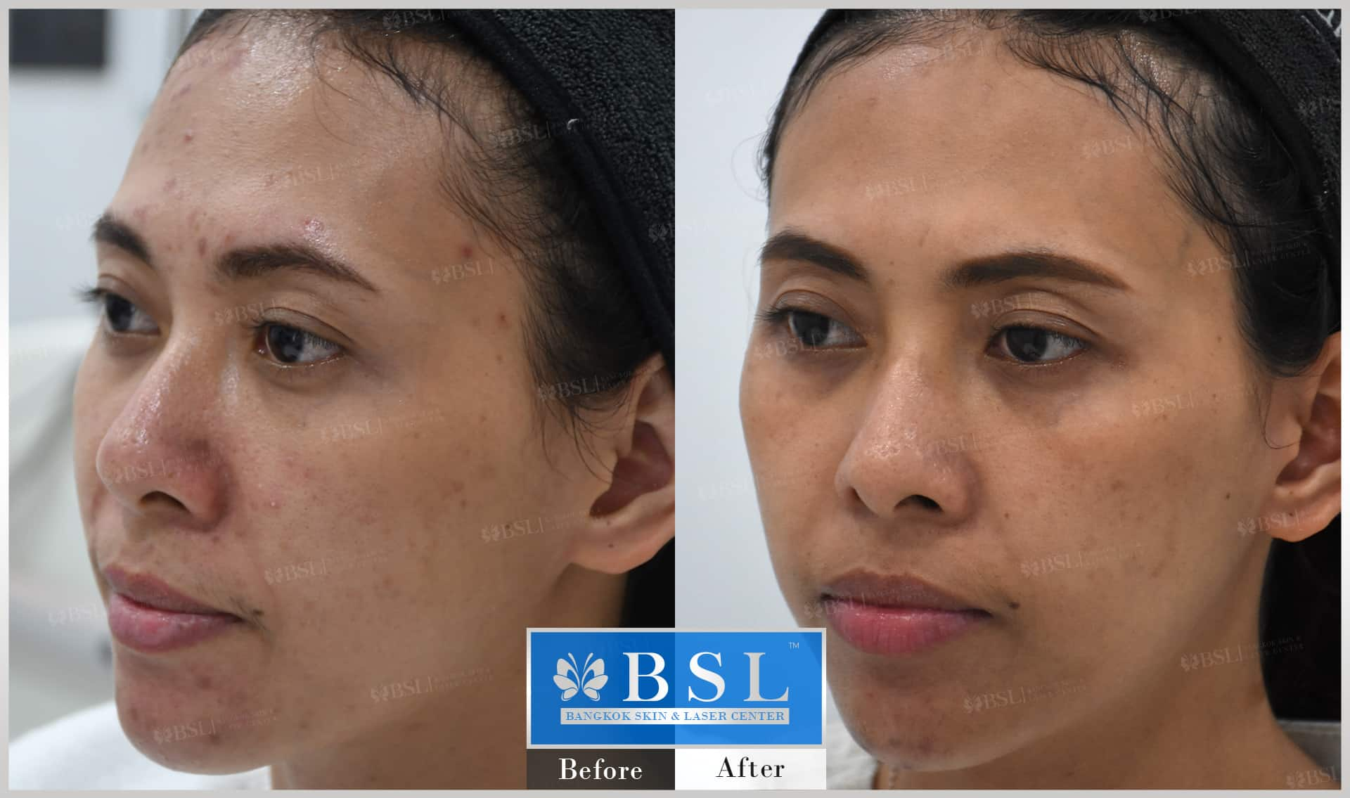 before-after-results-acne-055