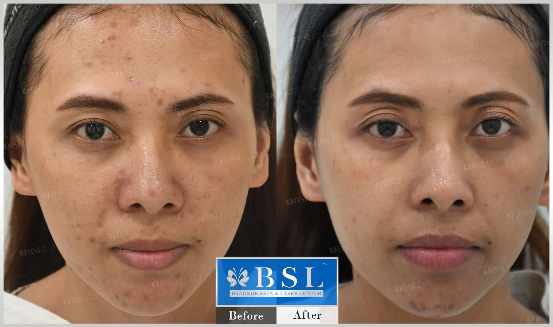 before-after-results-acne-056