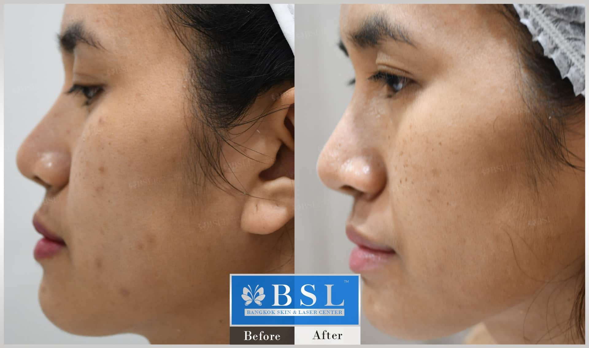before-after-results-acne-057