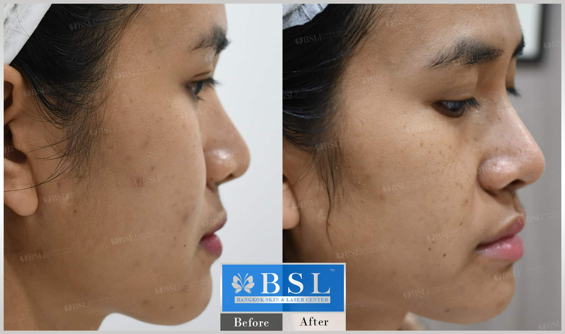 before-after-results-acne-058