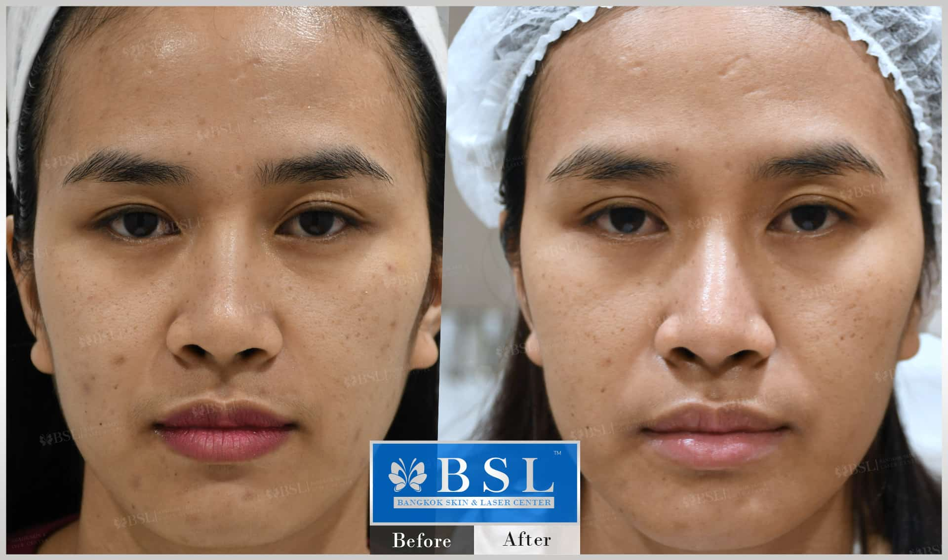 before-after-results-acne-059