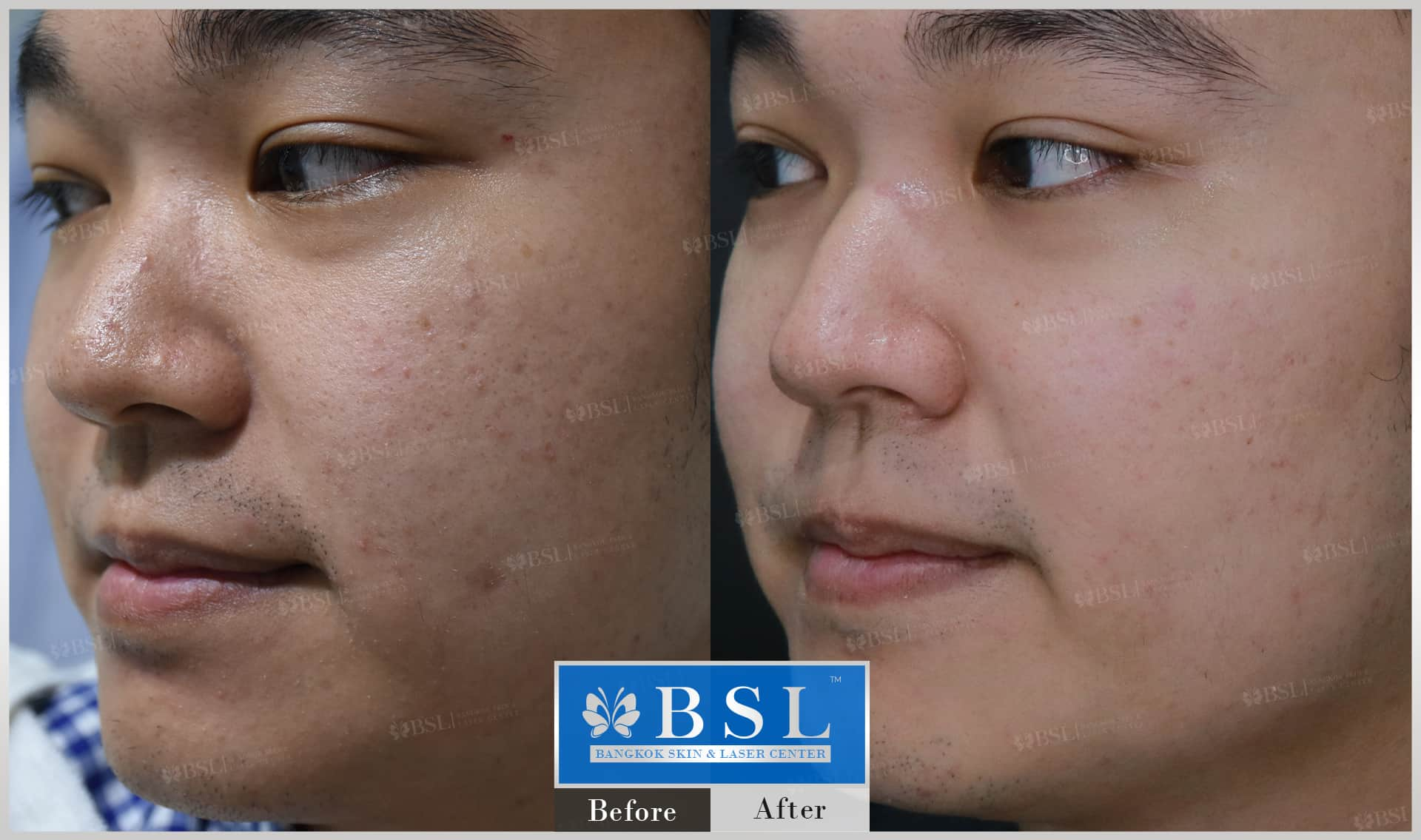 before-after-results-acne-060